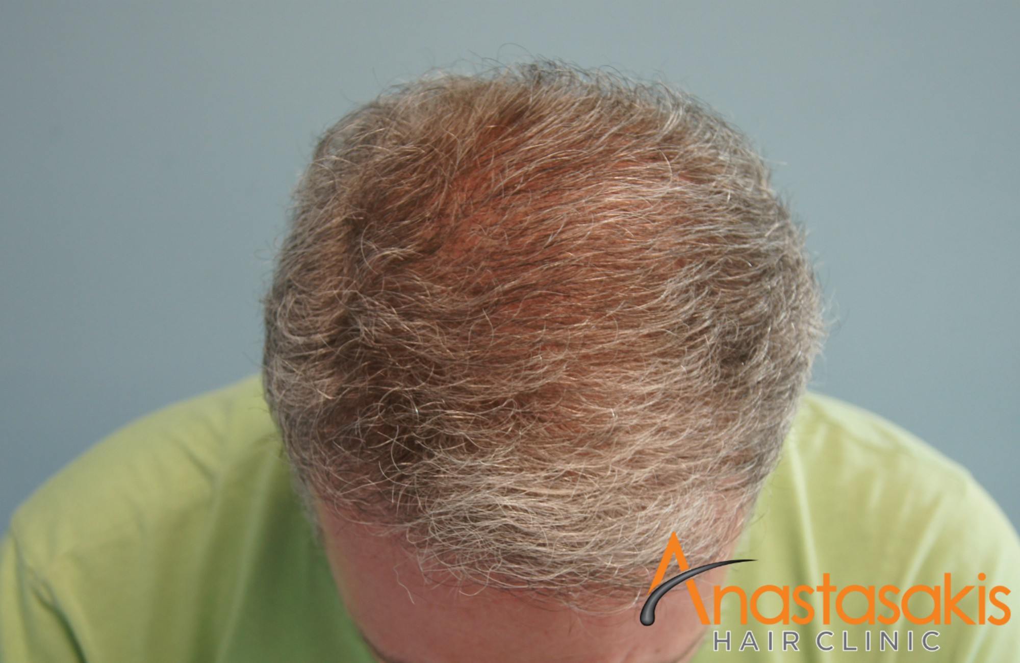 προσθια ασθενους μετα τη μεταμοσχευση μαλλιων με 2500 fus