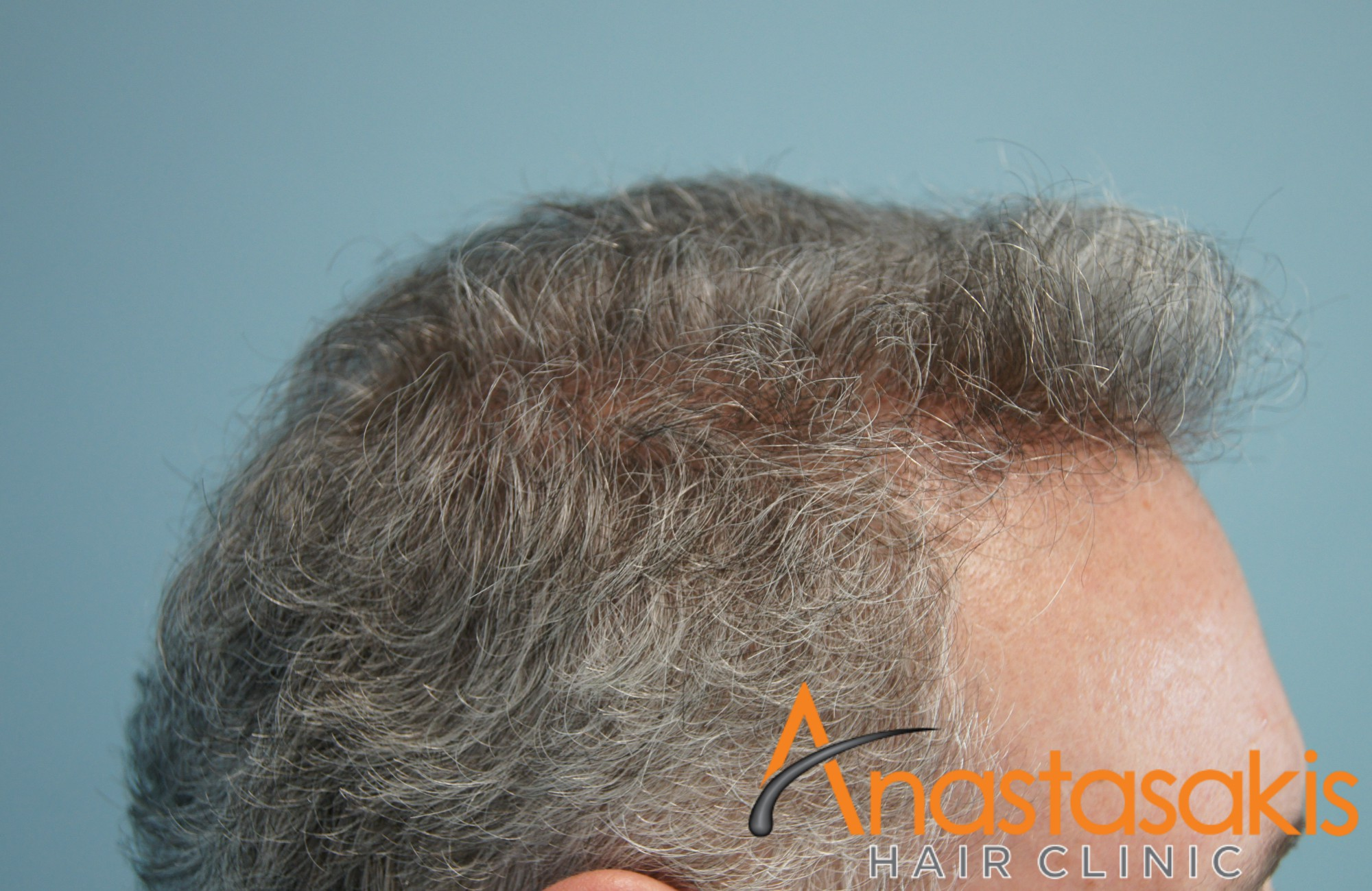 δεξι προφιλ ασθενους μετα τη μεταμοσχευση μαλλιων με 2500 fus