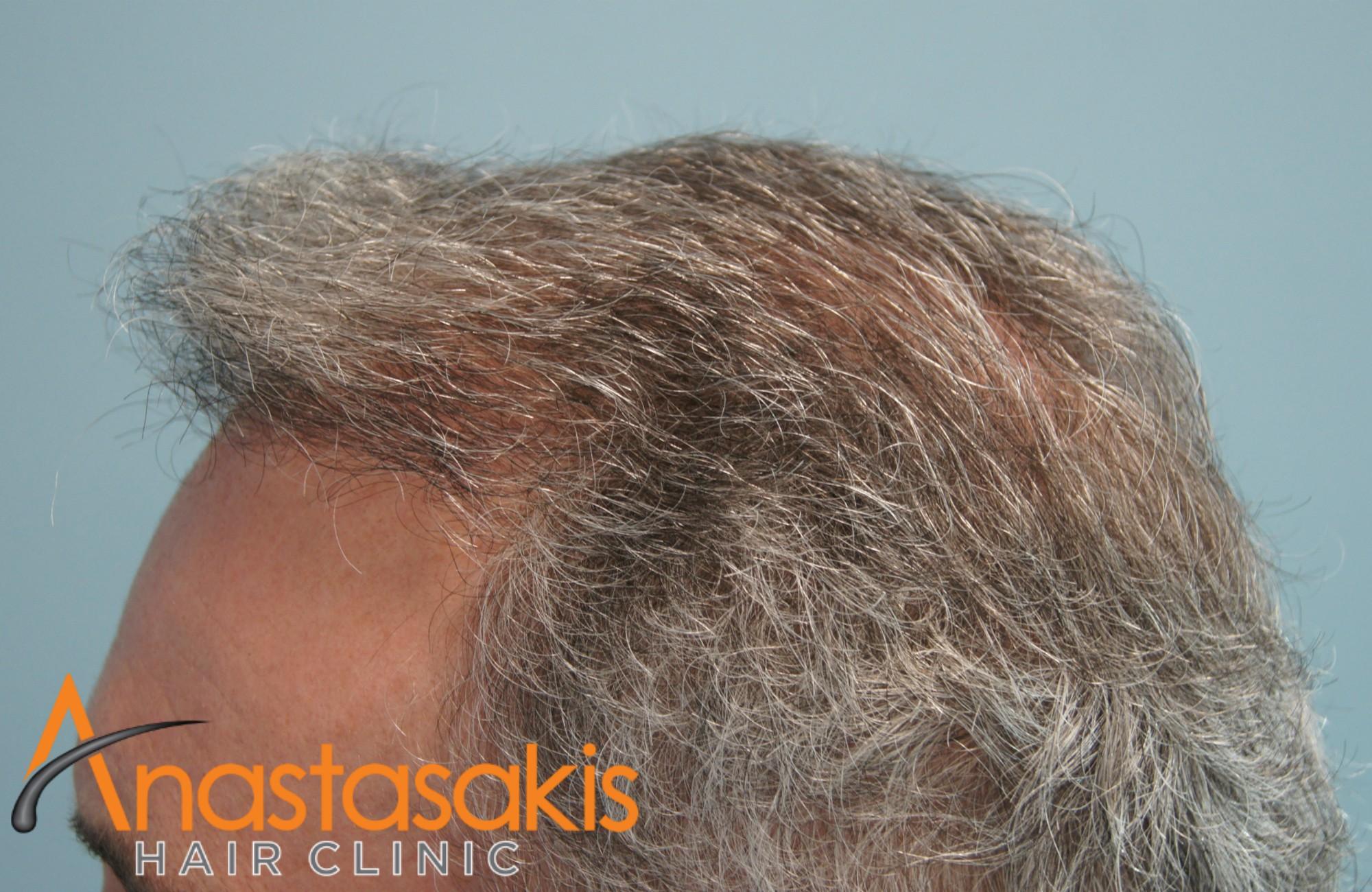 αριστερο προφιλ ασθενους μετα τη μεταμοσχευση μαλλιων με 2500 fus