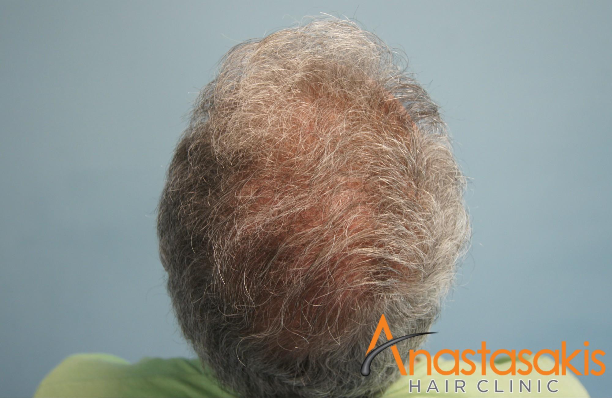 κορυφη ασθενους μετα τη μεταμοσχευση μαλλιων με 2500 fus