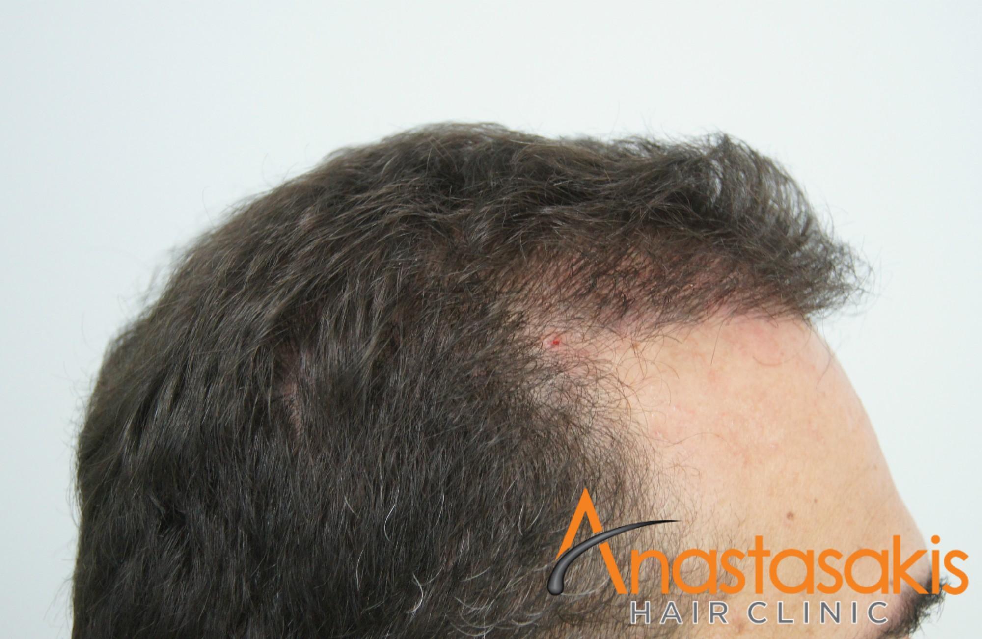 3000fus-fut-mm-anastasakis-hair-clinic