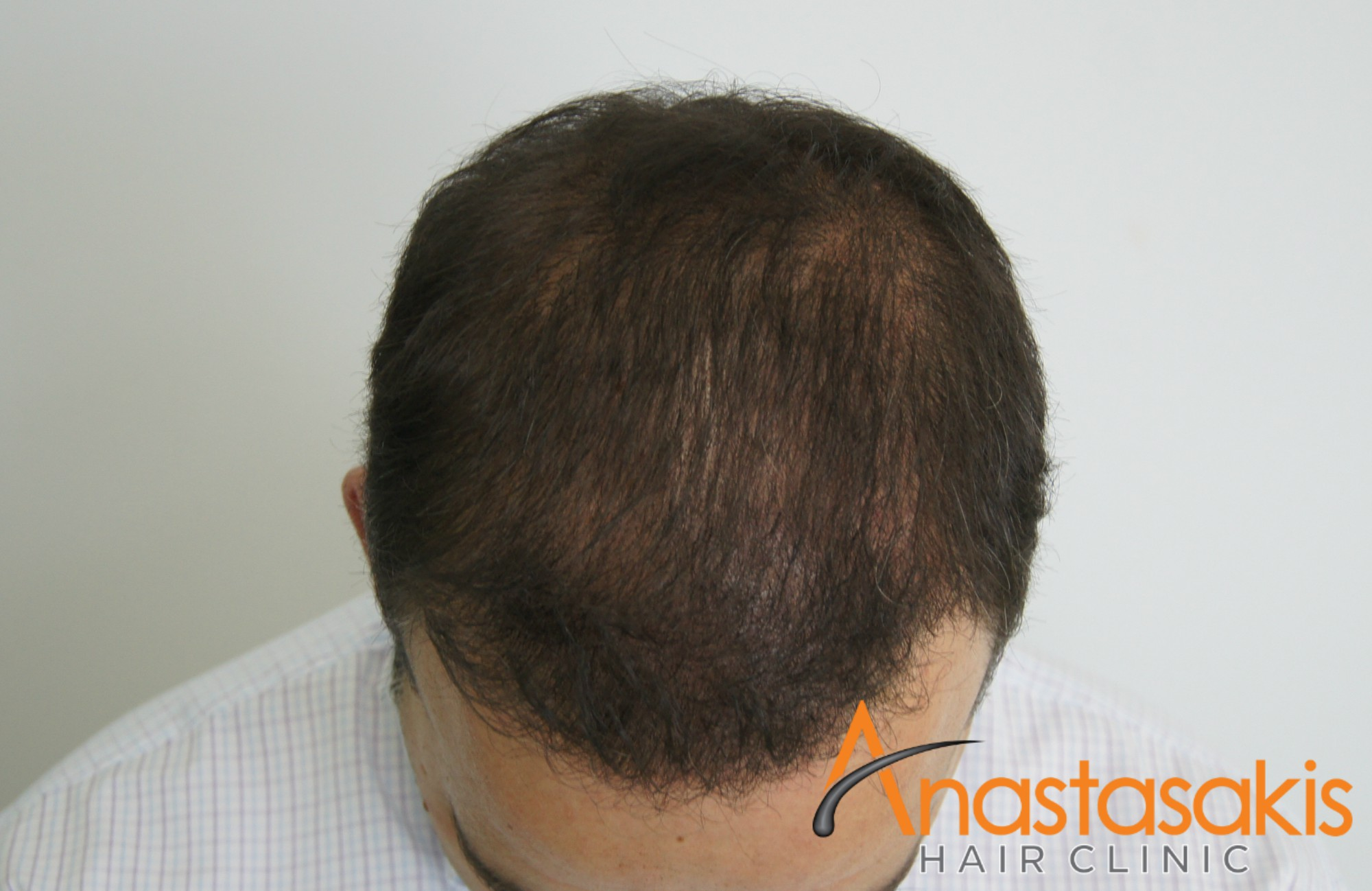 προσθια ασθενους μετα τη μεταμοσχευση μαλλιων με 3000 fus