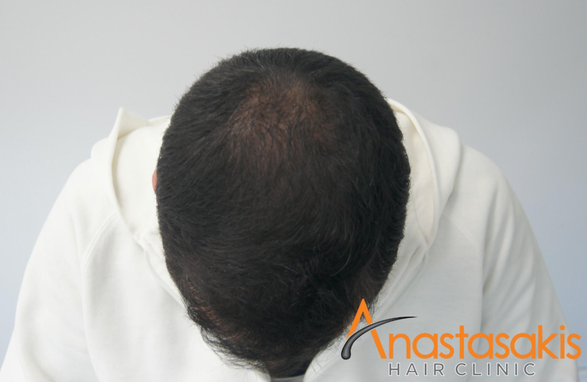 άνδρας μετά τη μεταμόσχευση μαλλιών fue με 1700fus μπροστά προφίλ
