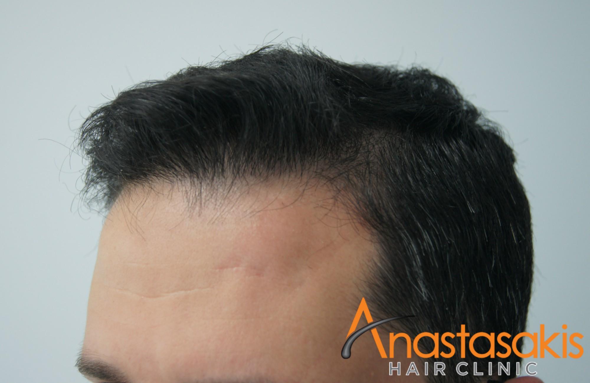 άνδρας μετά τη μεταμόσχευση μαλλιών fue με 1700fus αριστερό προφίλ 2
