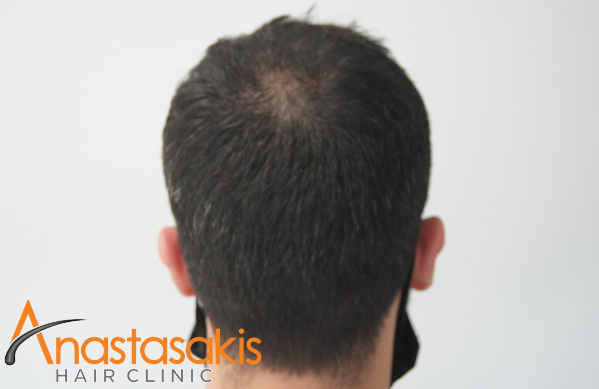 άνδρας μετά τη μεταμόσχευση μαλλιών fue με 1700fus crown