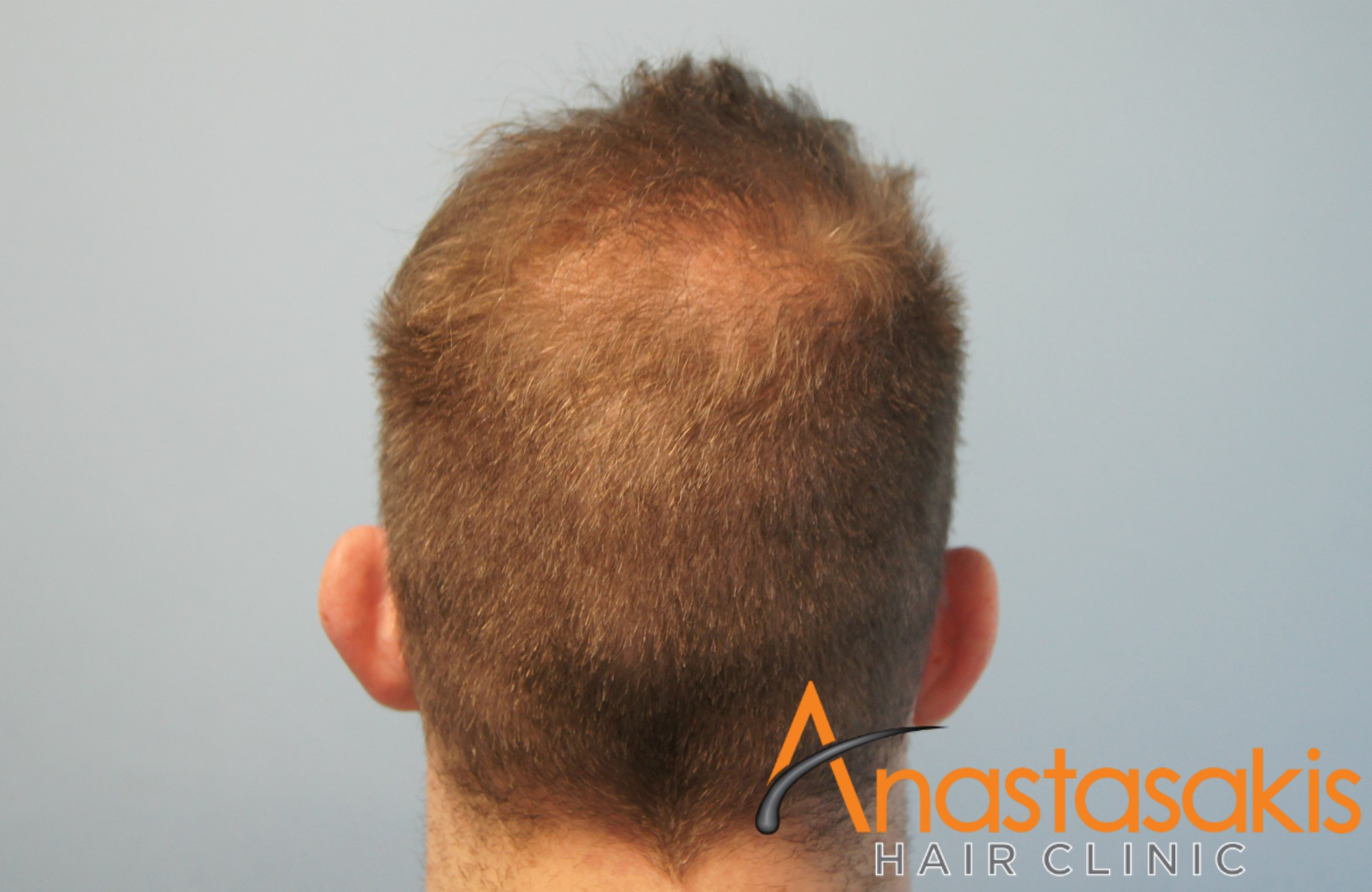 1500fus-fue-mm-anastasakis-hair-clinic-RESULT