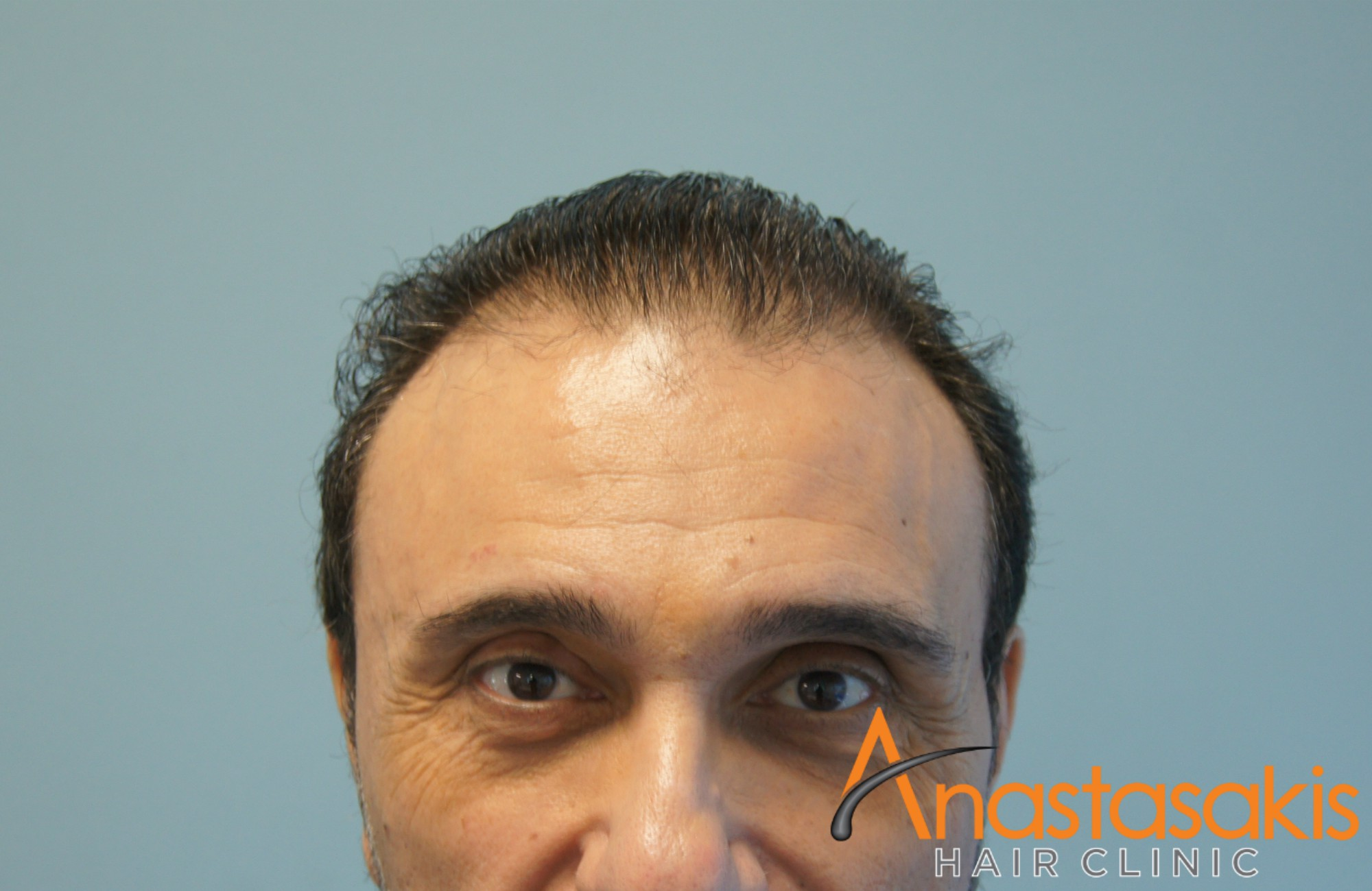 hairline αλεκος ζαζοπουλος πριν τη μεταμοσχευση μαλλιων με 2500 fus