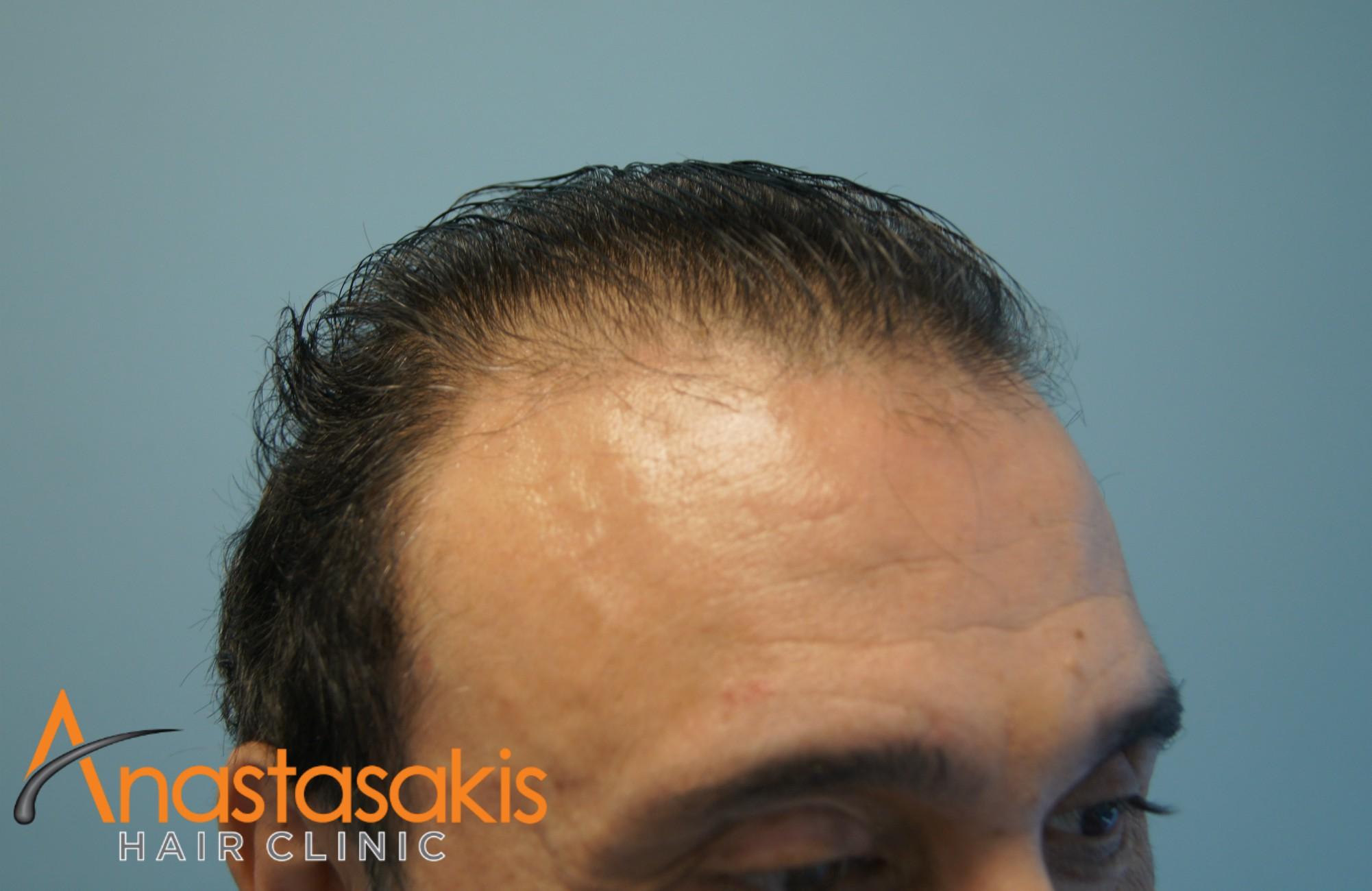 δεξι προφιλ αλεκος ζαζοπουλος πριν τη μεταμοσχευση μαλλιων με 2500 fus