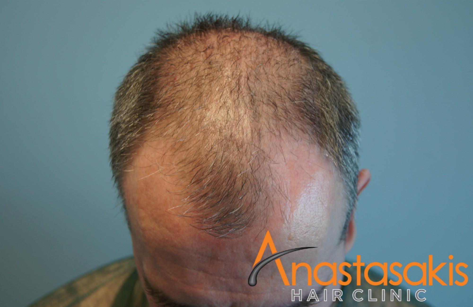 προσθια περιοχη ασθενους πριν τη μεταμοσχευση μαλλιων με 3050 fus