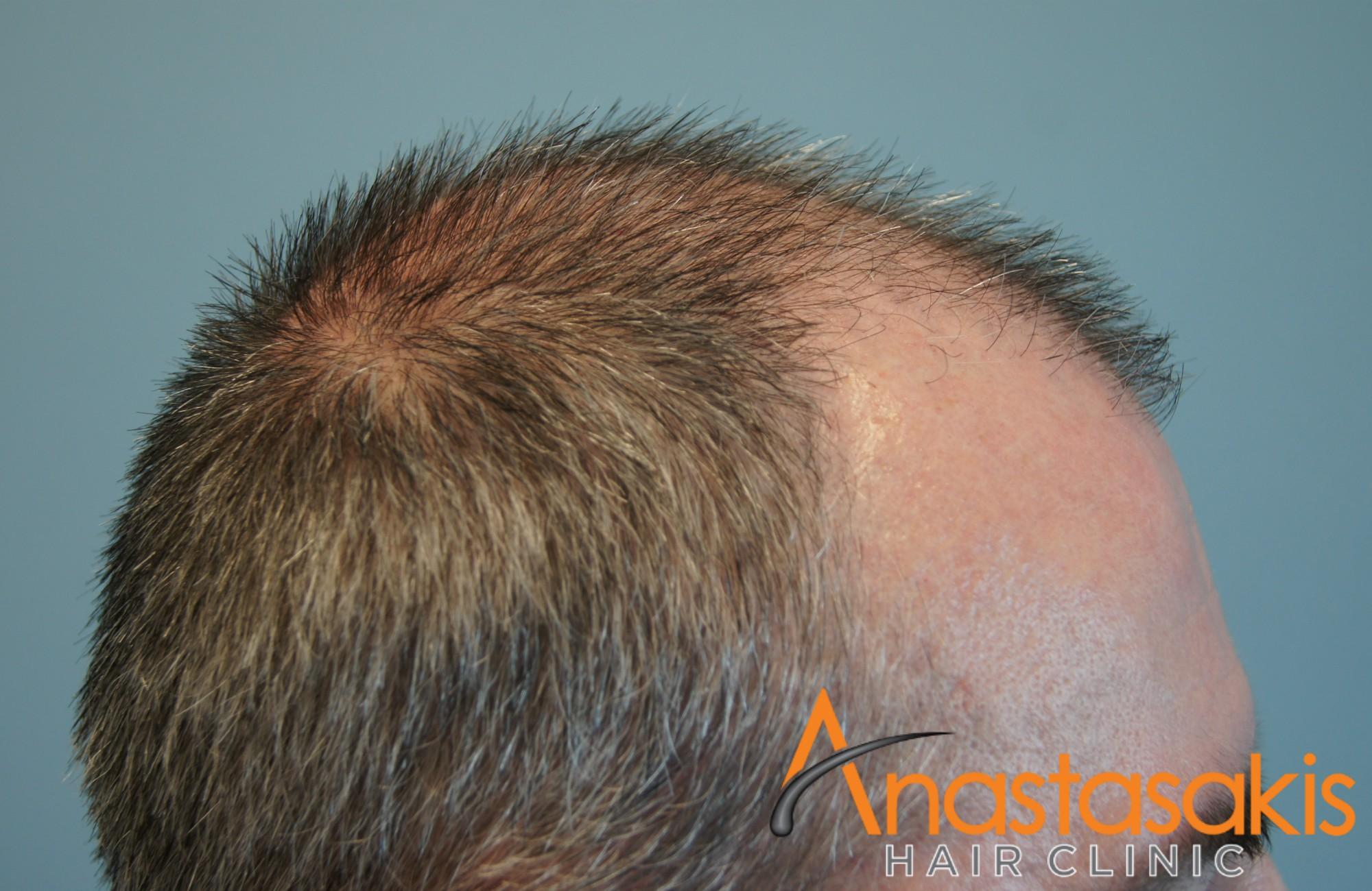 δεξι προφιλ ασθενους πριν τη μεταμοσχευση μαλλιων με 3050 fus