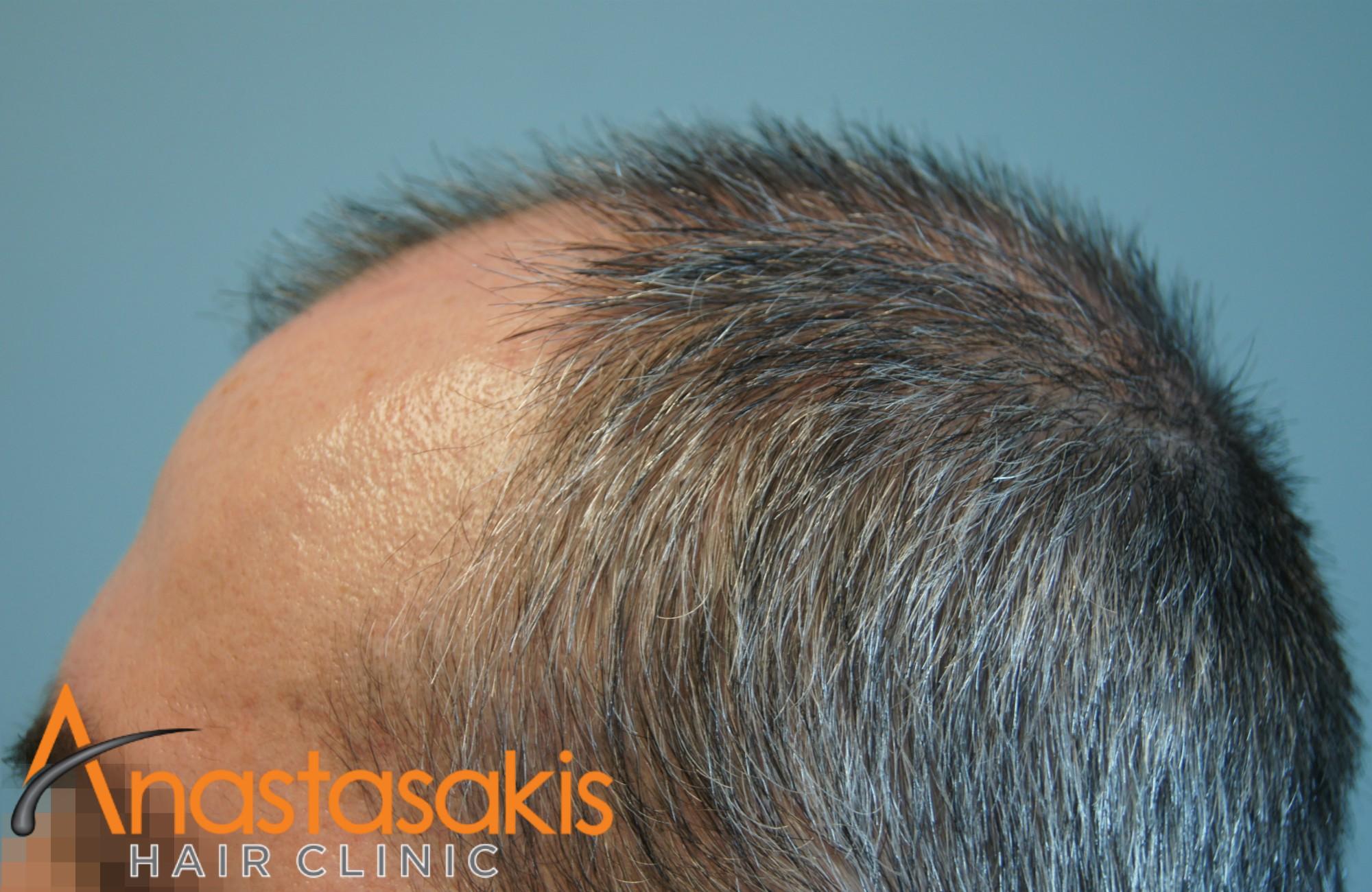 αριστερο προφιλ ασθενους πριν τη μεταμοσχευση μαλλιων με 3050 fus