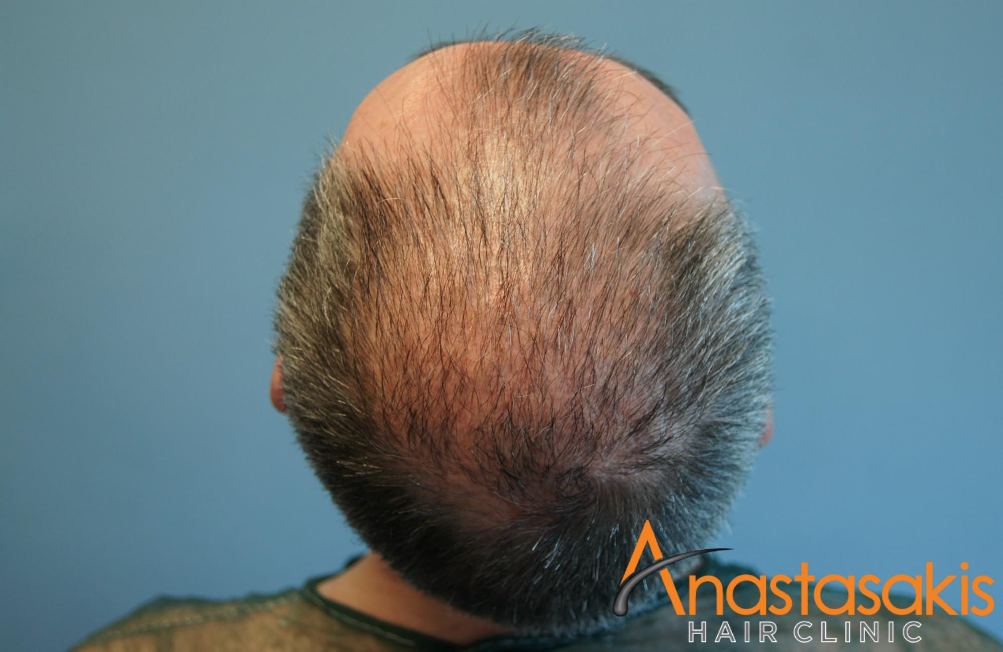 κορυφη ασθενους πριν τη μεταμοσχευση μαλλιων με 3050 fus