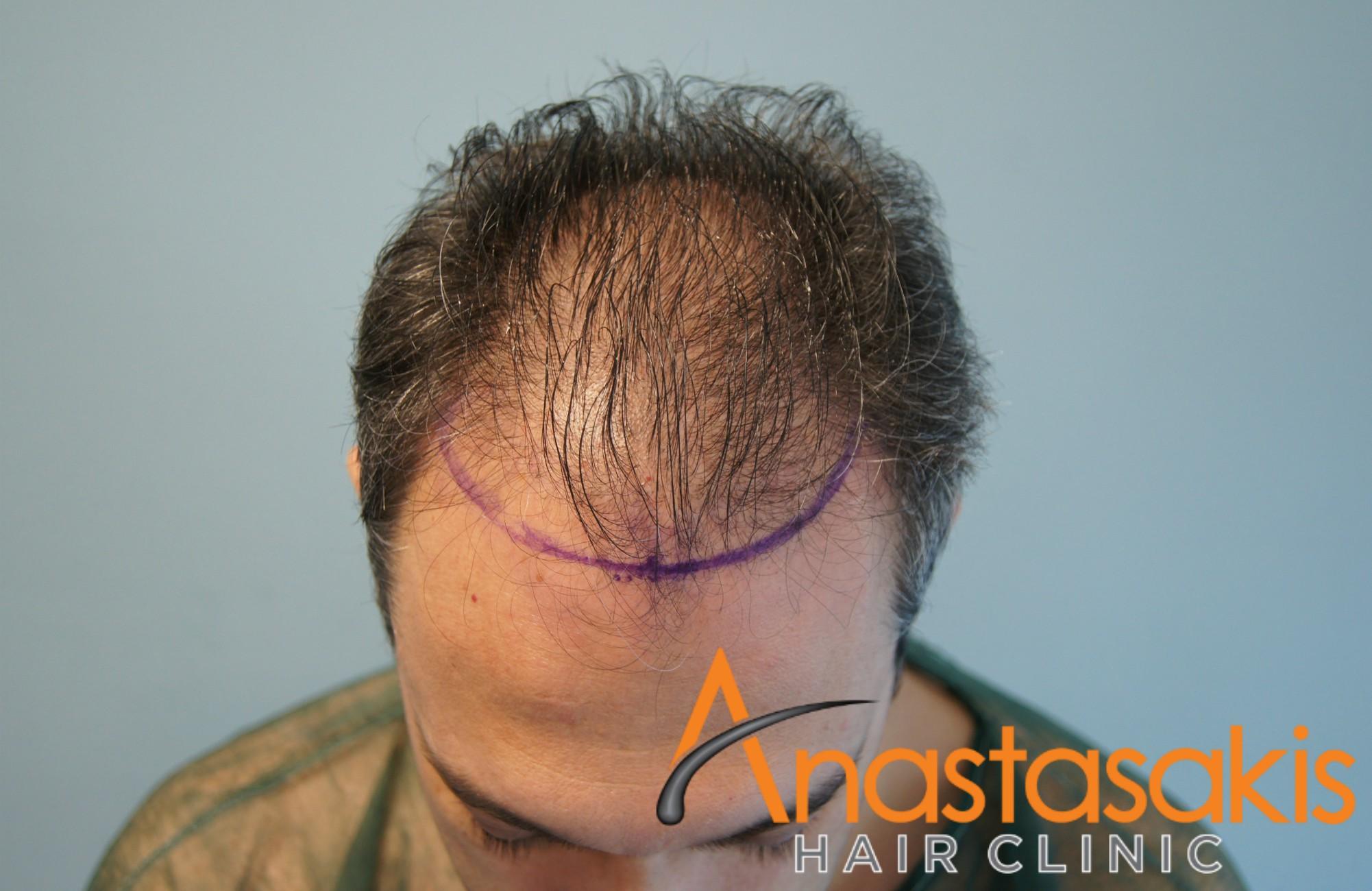άνδρας πριν την μεταμόσχευση fut με 2700fus front