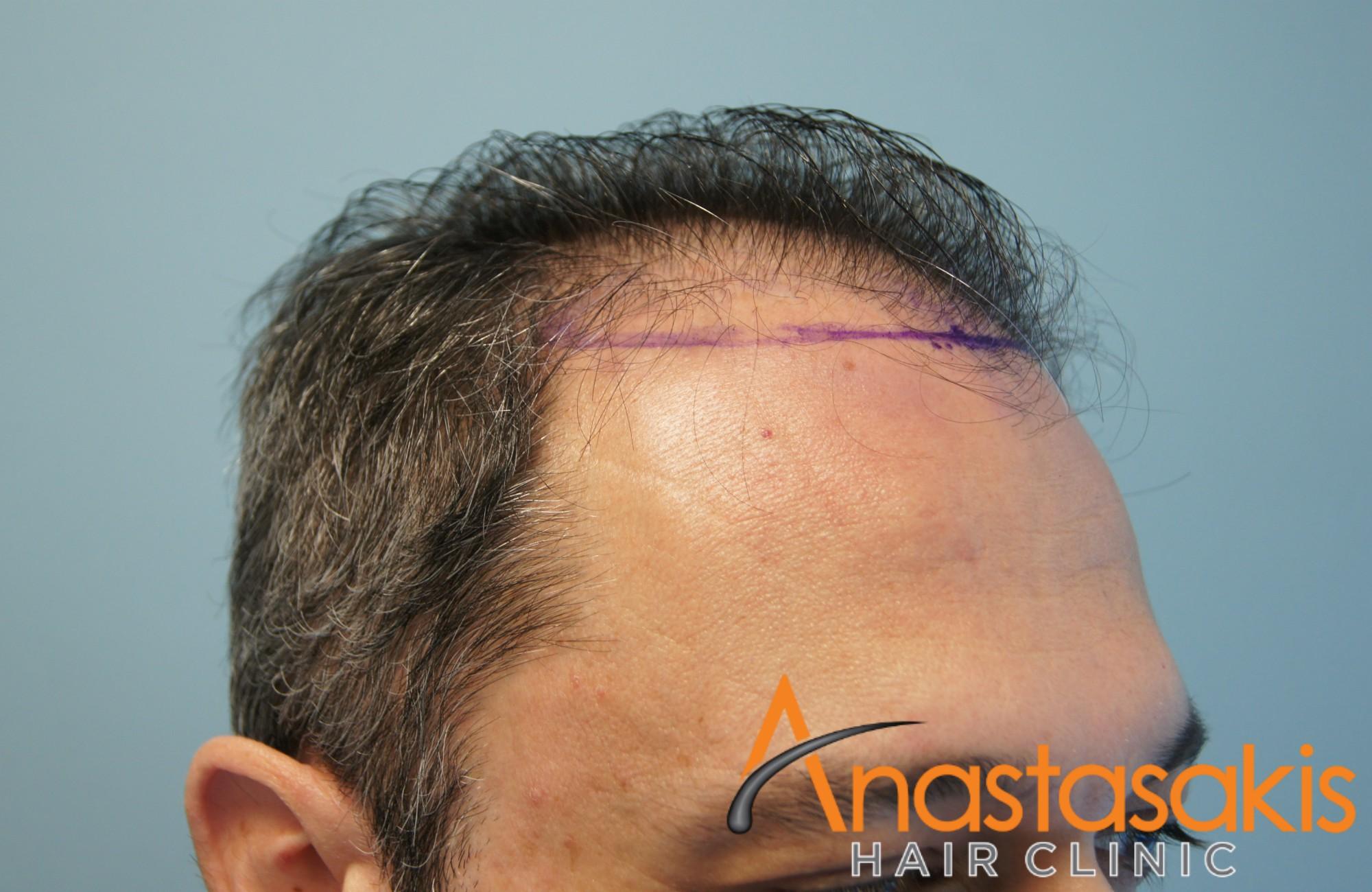άνδρας πριν την μεταμόσχευση fut με 2700fus αριστερό προφίλ 2