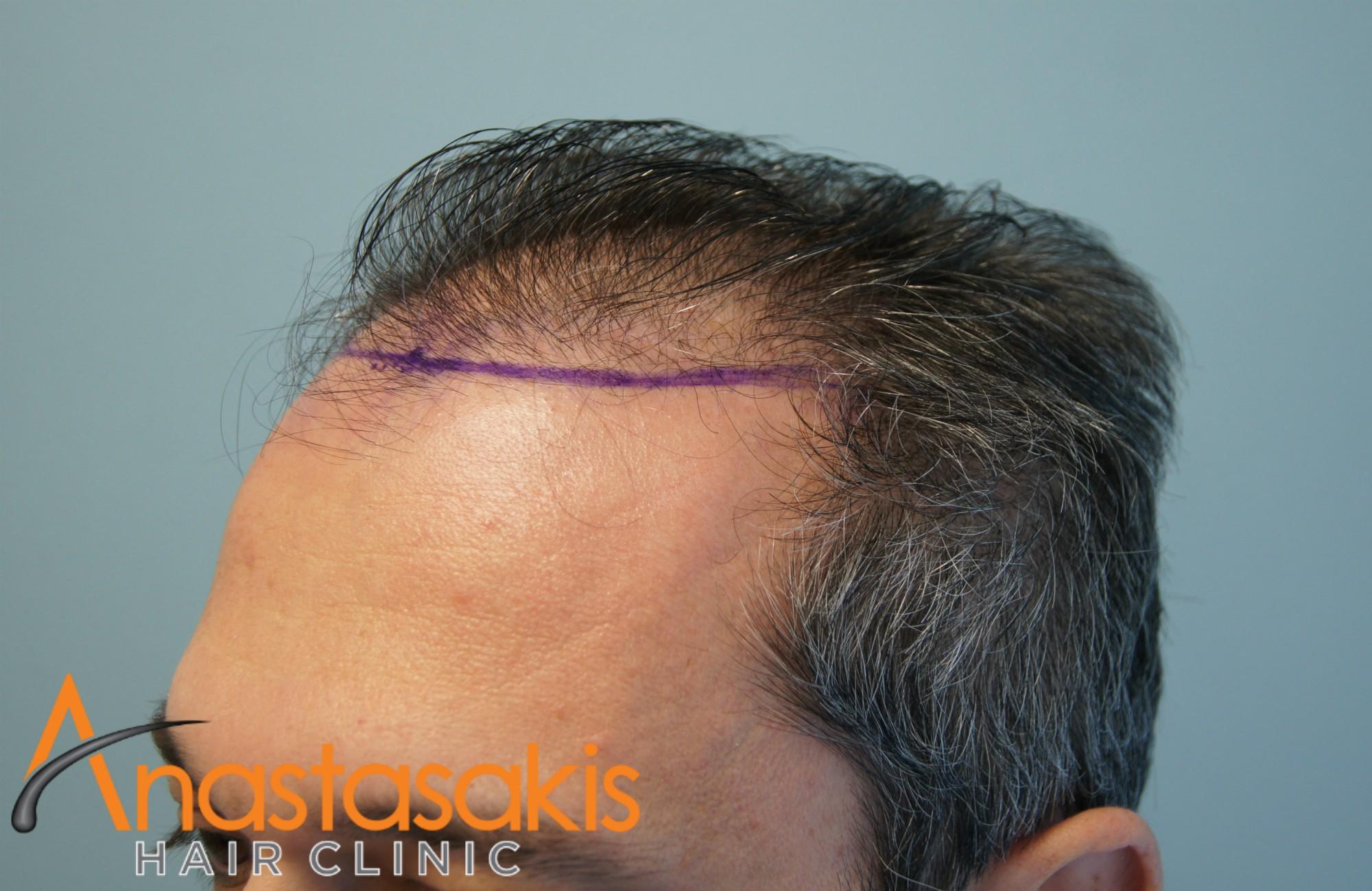 άνδρας πριν την μεταμόσχευση fut με 2700fus δεξί προφίλ 2