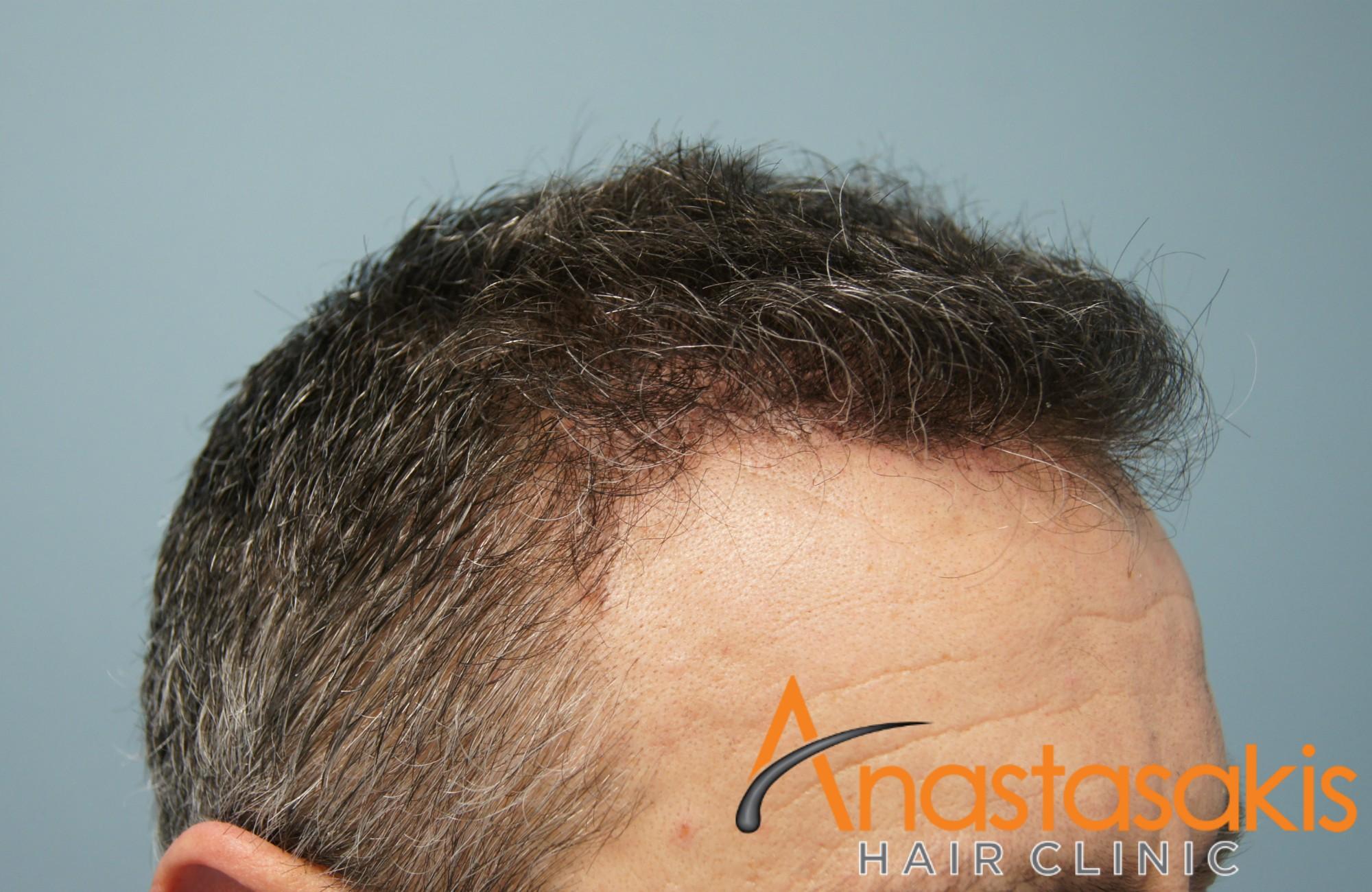 δεξης κροταφος 2 ασθενους μετα τη μεταμοσχευση μαλλιων με 2100 fus