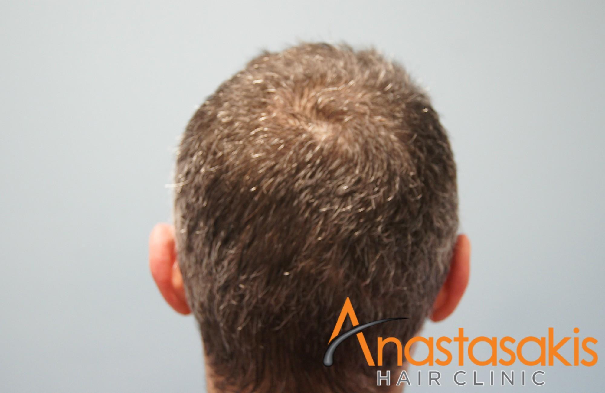 κορυφη ασθενους μετα τη μεταμοσχευση μαλλιων με 2100 fus