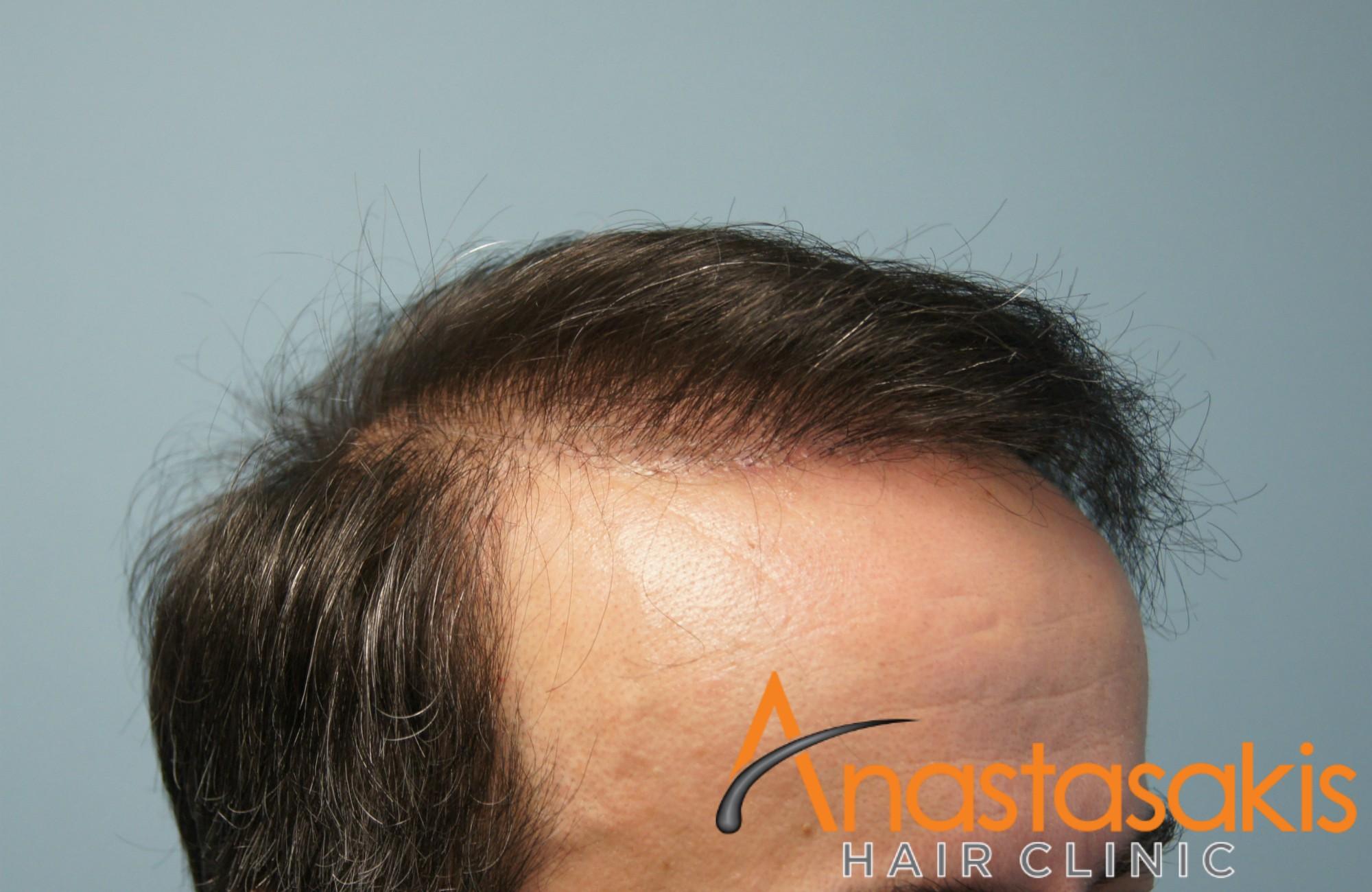 δεξι προφιλ ασθενους μετα τη μεταμοσχευση μαλλιων με 3300 fus