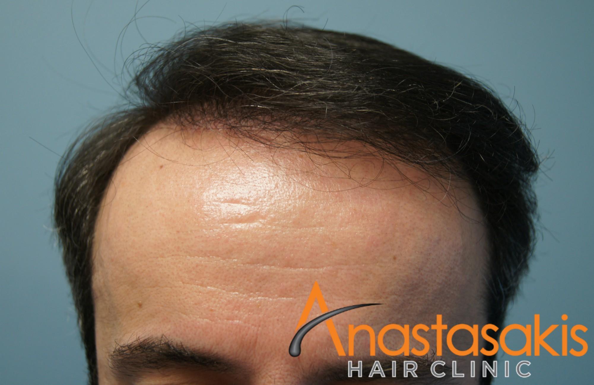 hairline ασθενους μετα τη μεταμοσχευση μαλλιων με 3300 fus