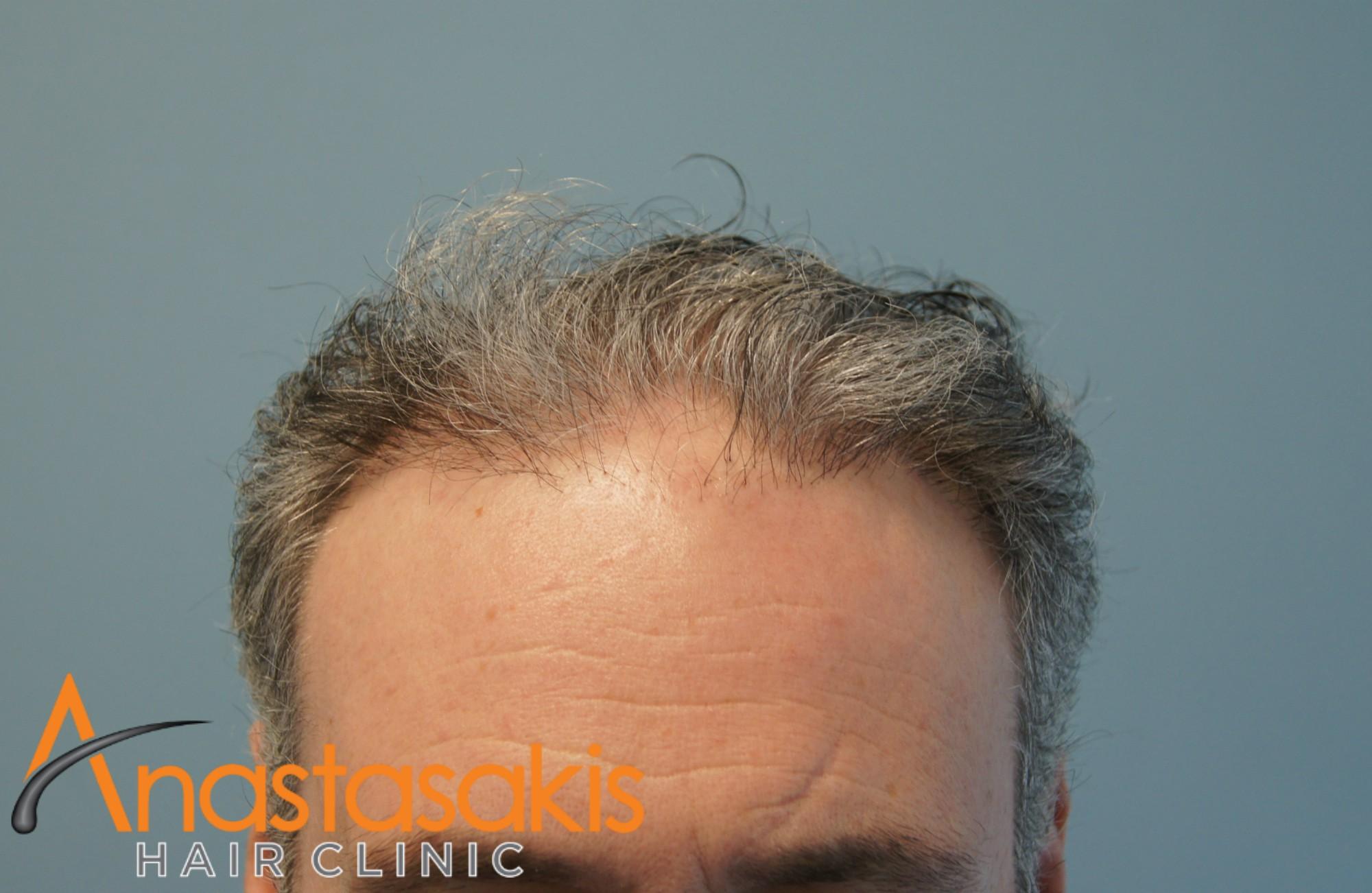 hairline ασθενους πριν τη μεταμοσχευση μαλλιων με 2500 fus