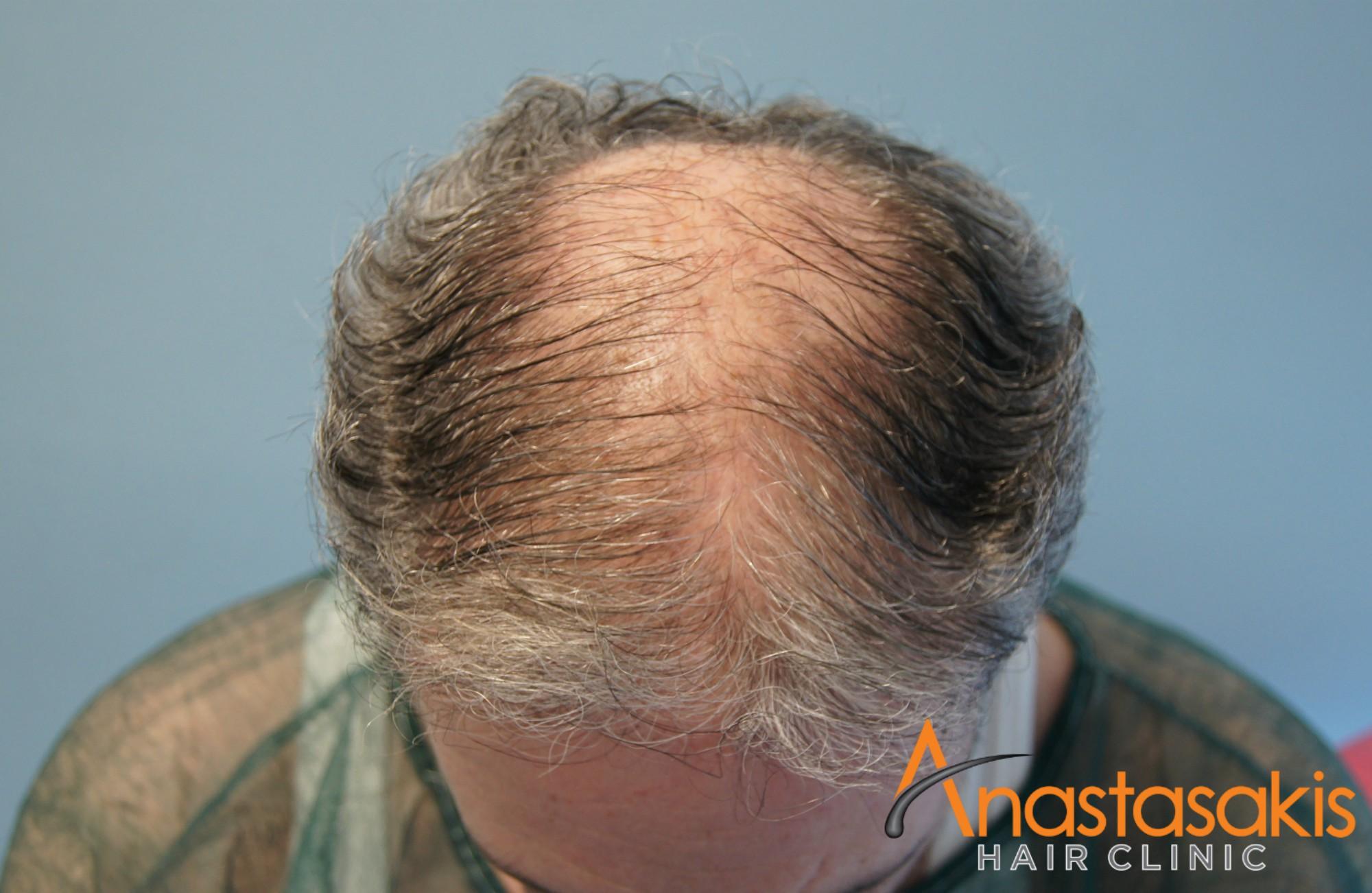 προσθια περιοχη ασθενους πριν τη μεταμοσχευση μαλλιων με 2500 fus