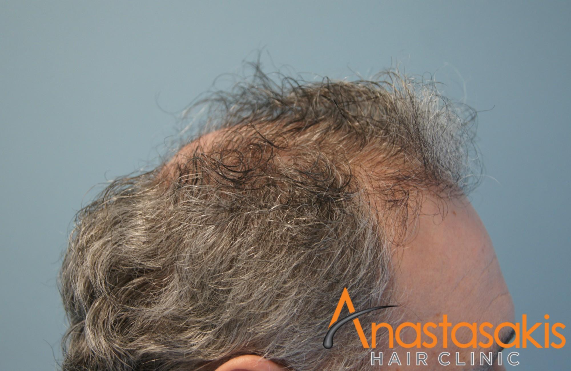 δεξί προφιλ ασθενους πριν τη μεταμοσχευση μαλλιων με 2500 fus