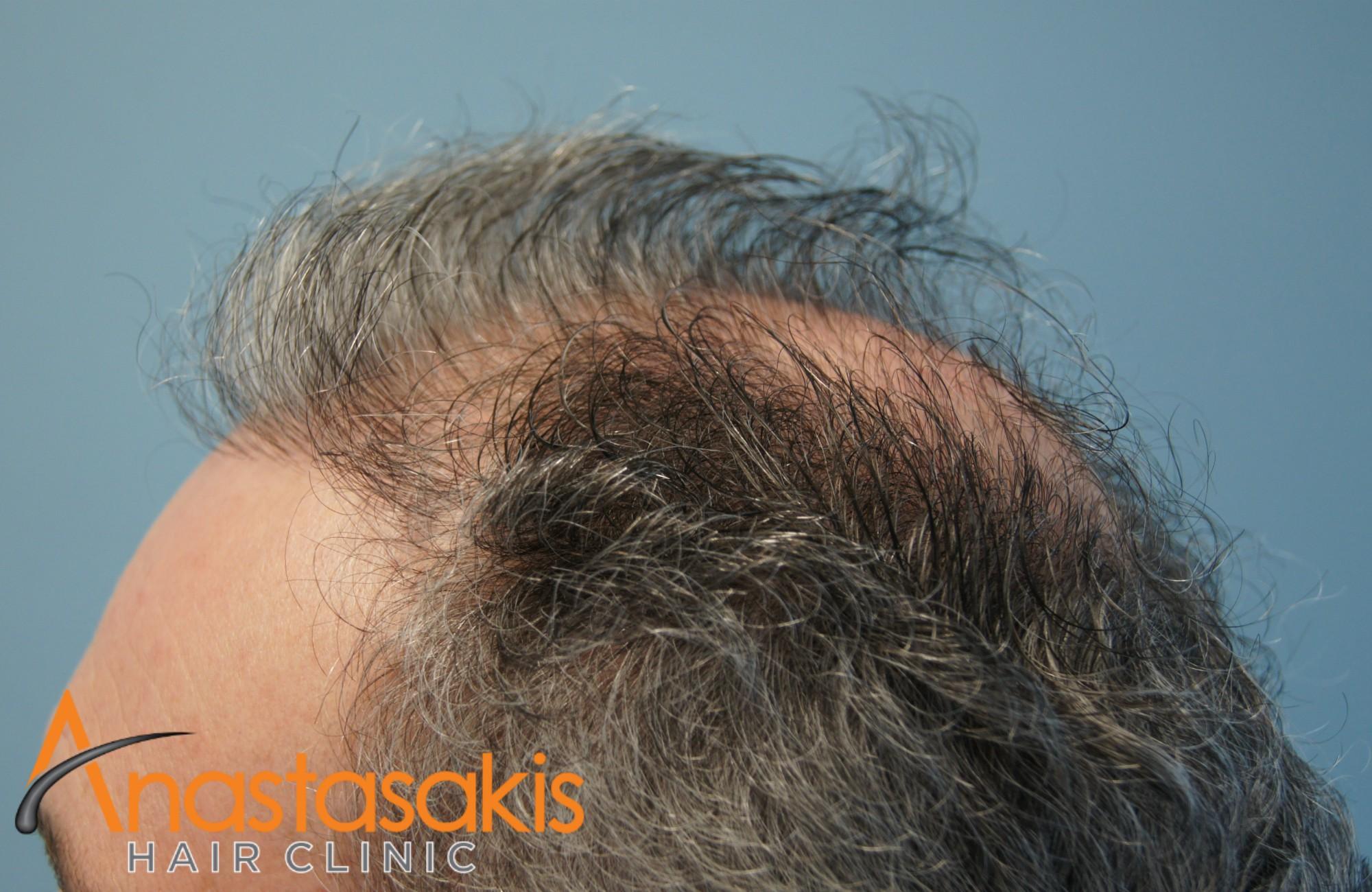 αριστερο προφιλ ασθενους πριν τη μεταμοσχευση μαλλιων με 2500 fus