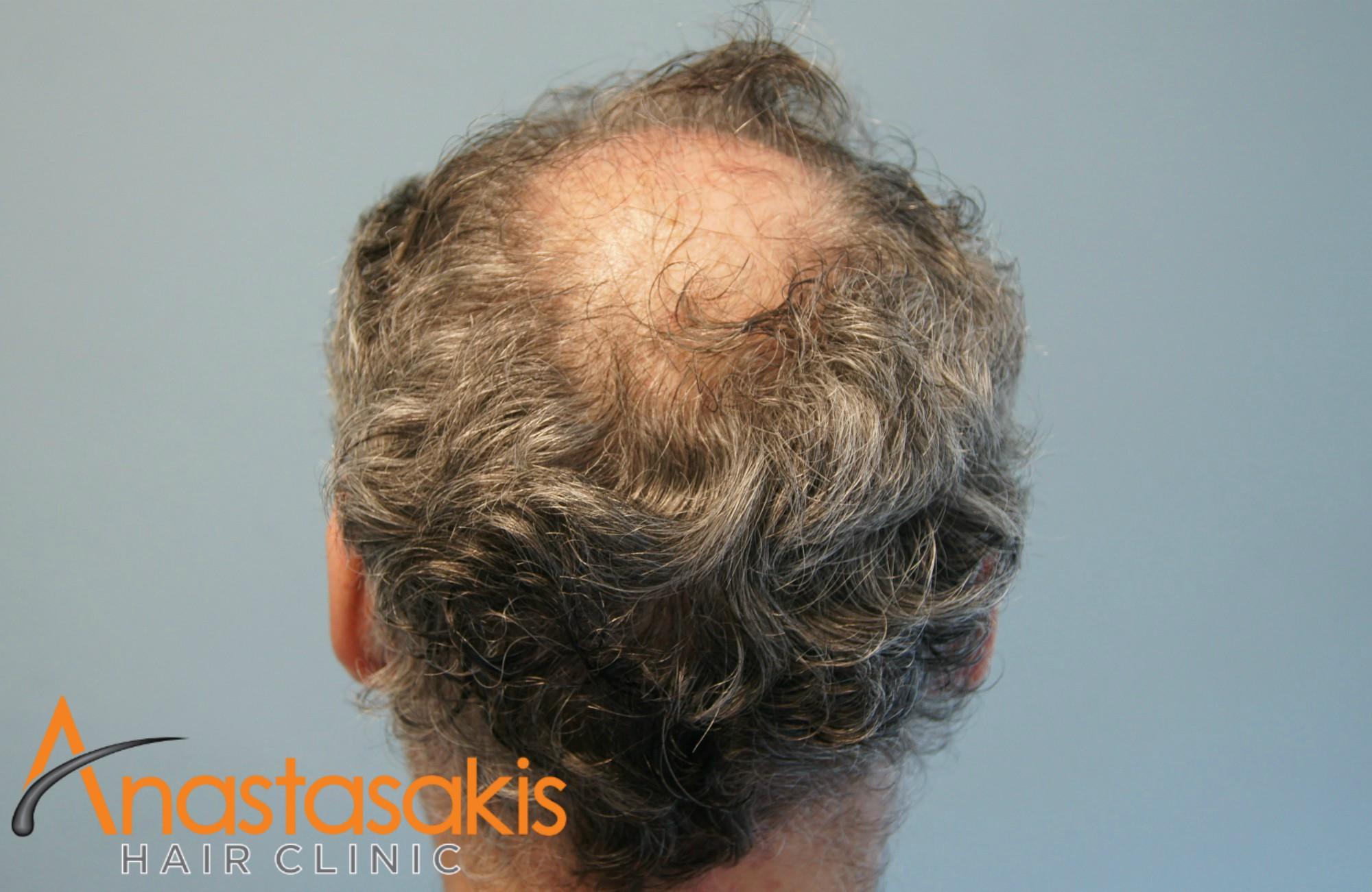 δότρια ασθενους πριν τη μεταμοσχευση μαλλιων με 2500 fus