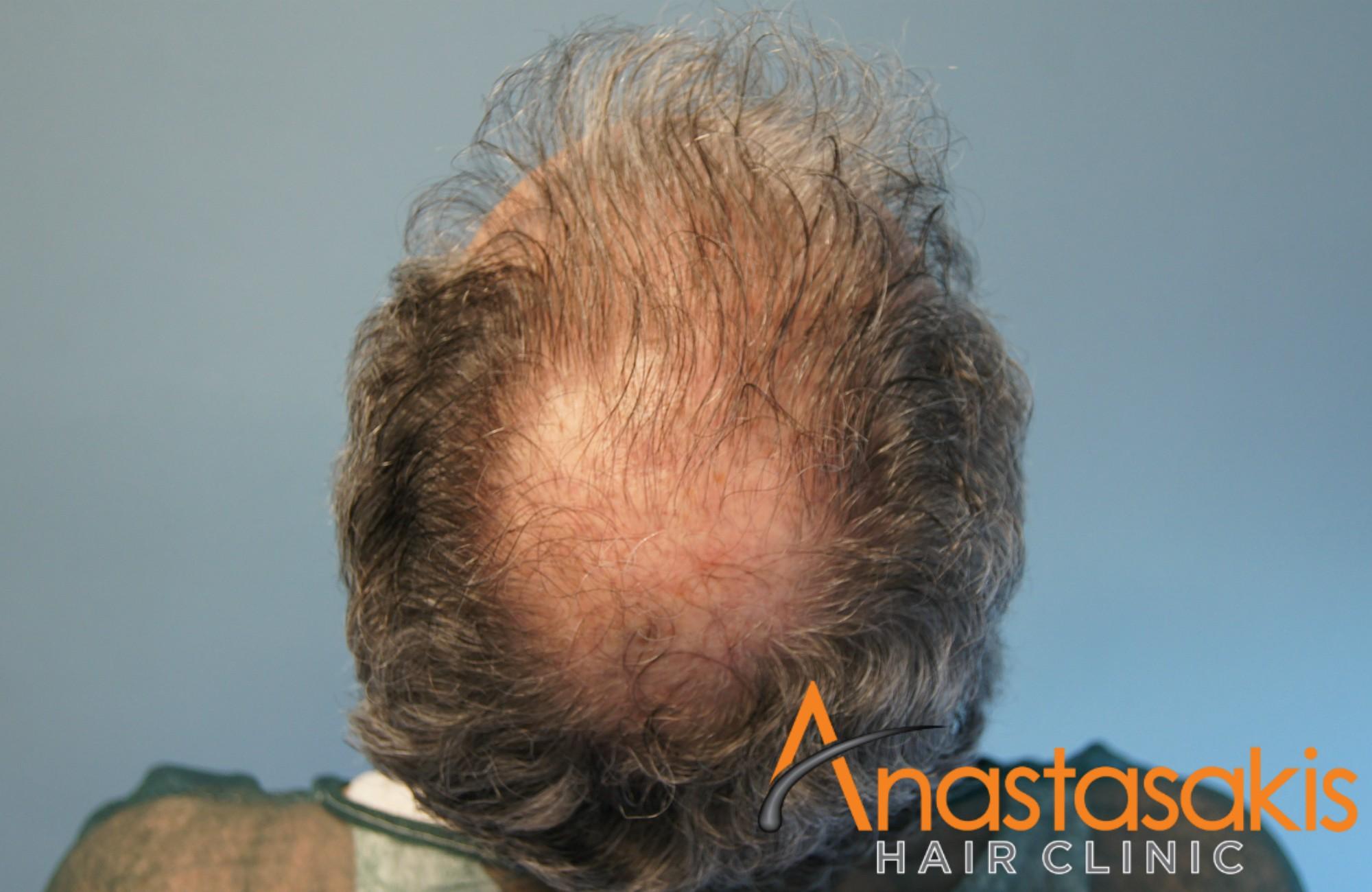 κορυφη ασθενους πριν τη μεταμοσχευση μαλλιων με 2500 fus