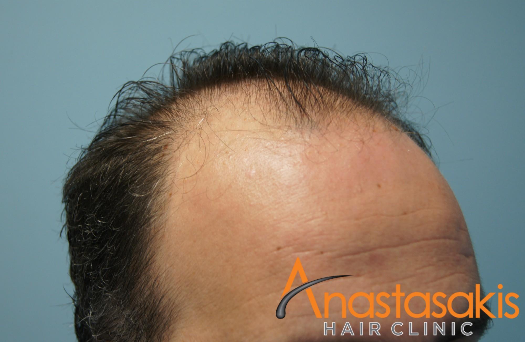 δεξι προφιλ 2 ασθενους πριν τη μεταμοσχευση μαλλιων με 3000 fus