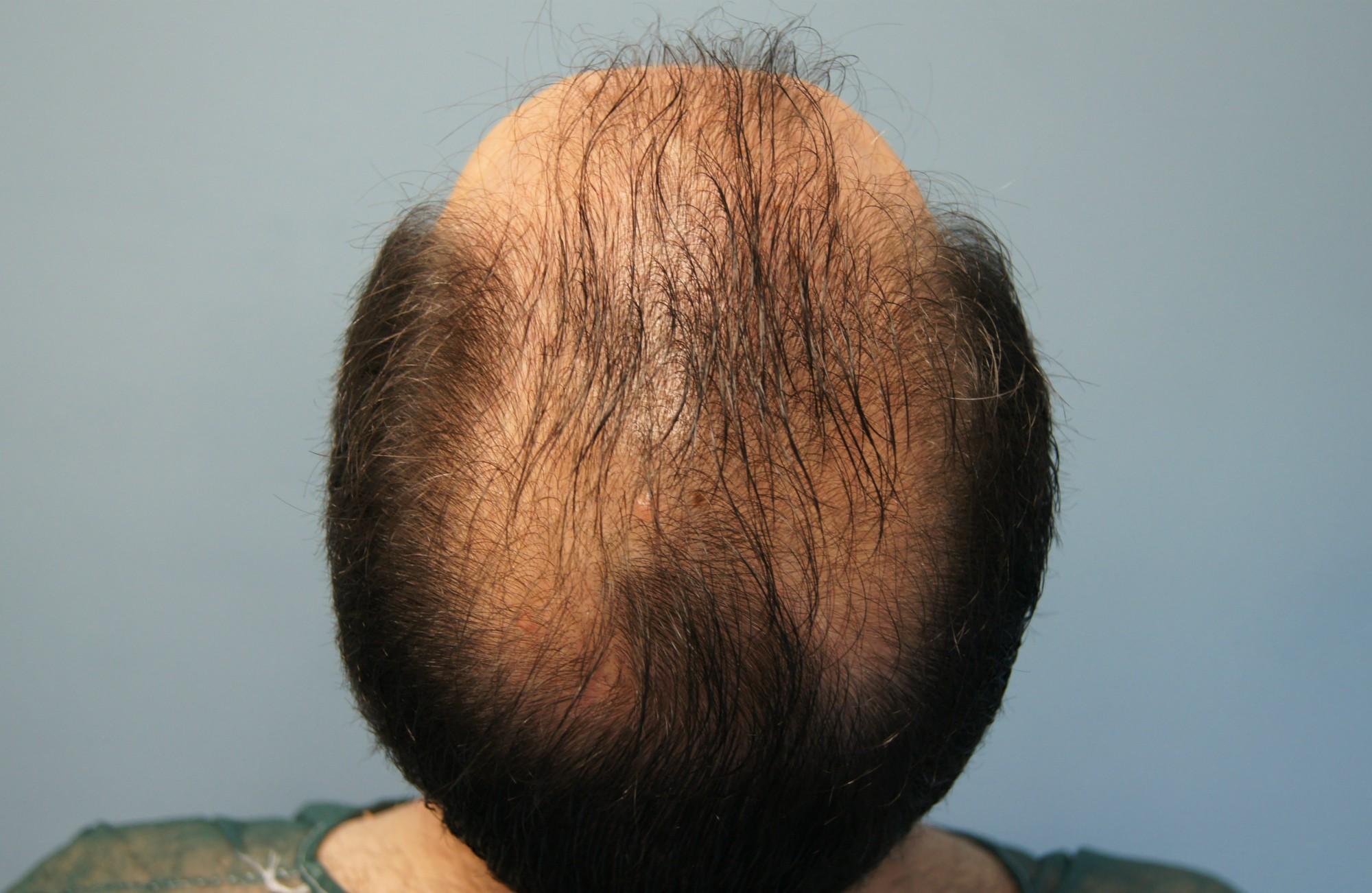 κορυφη ασθενους πριν τη μεταμοσχευση μαλλιων με 3000 fus