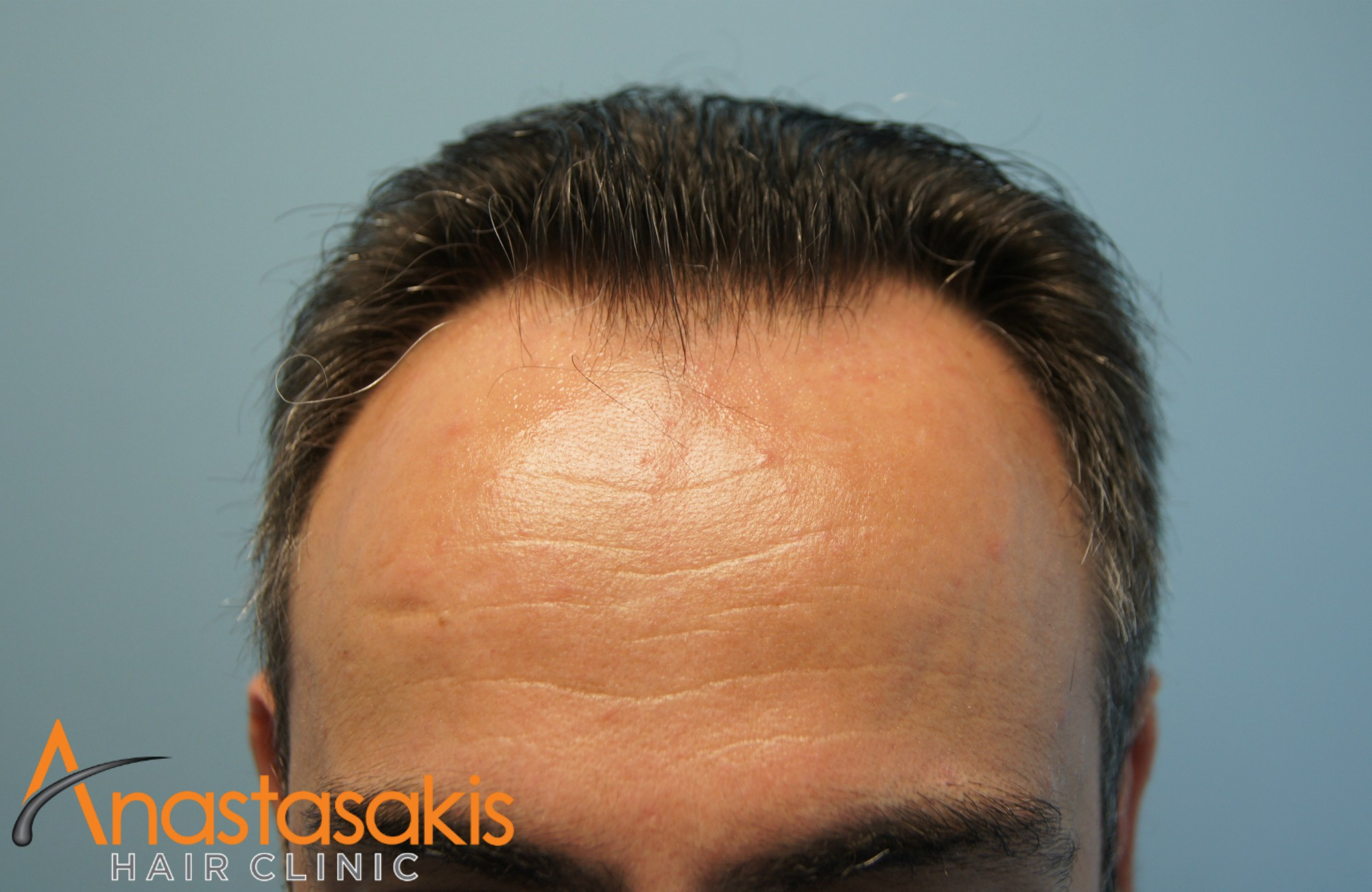 2800fus-fut-mm-anastasakis-hair-clinic-RESULT