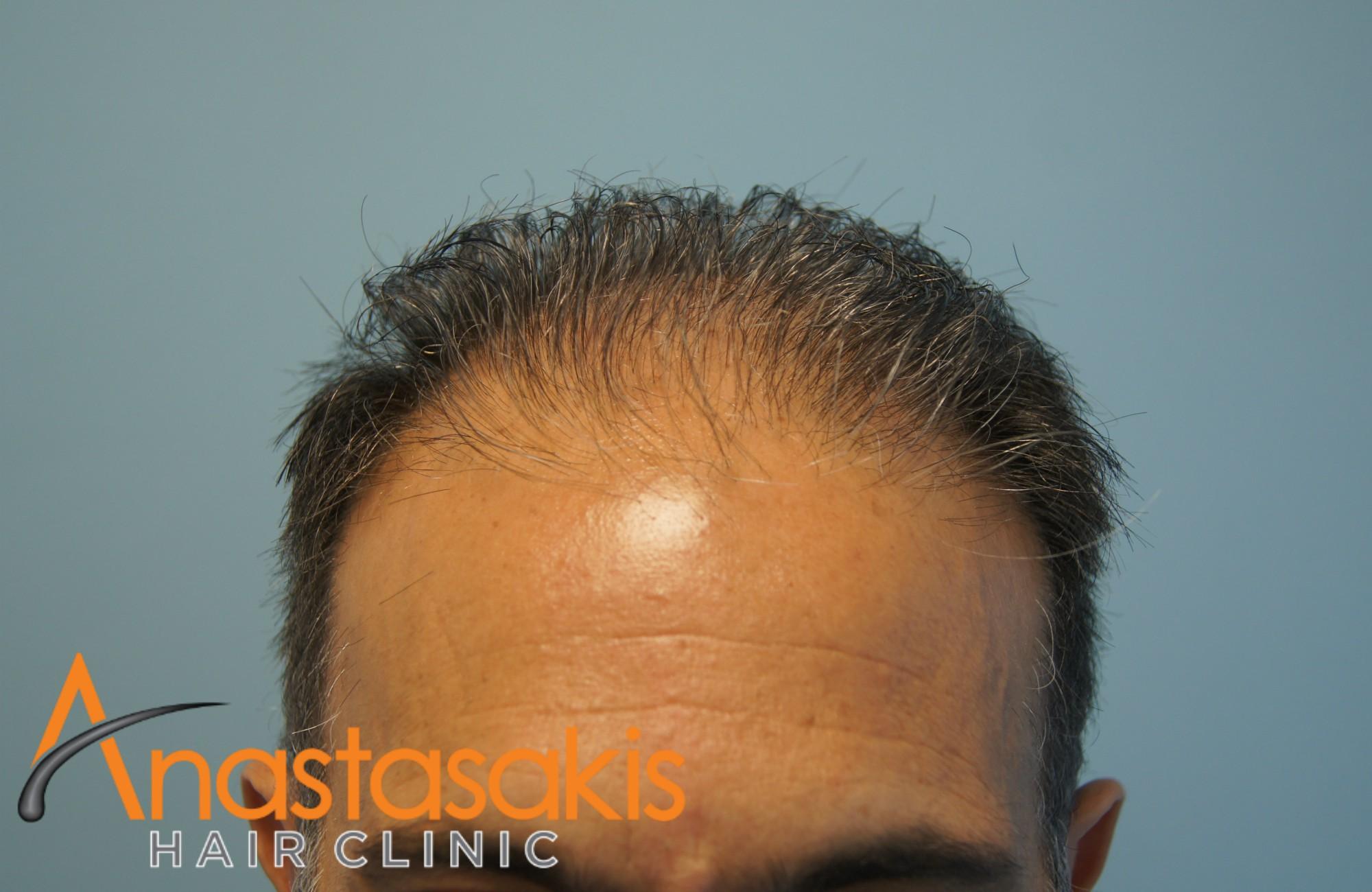 hairline ασθενους πριν τη μεταμοσχευση μαλλιων με 3000 fus