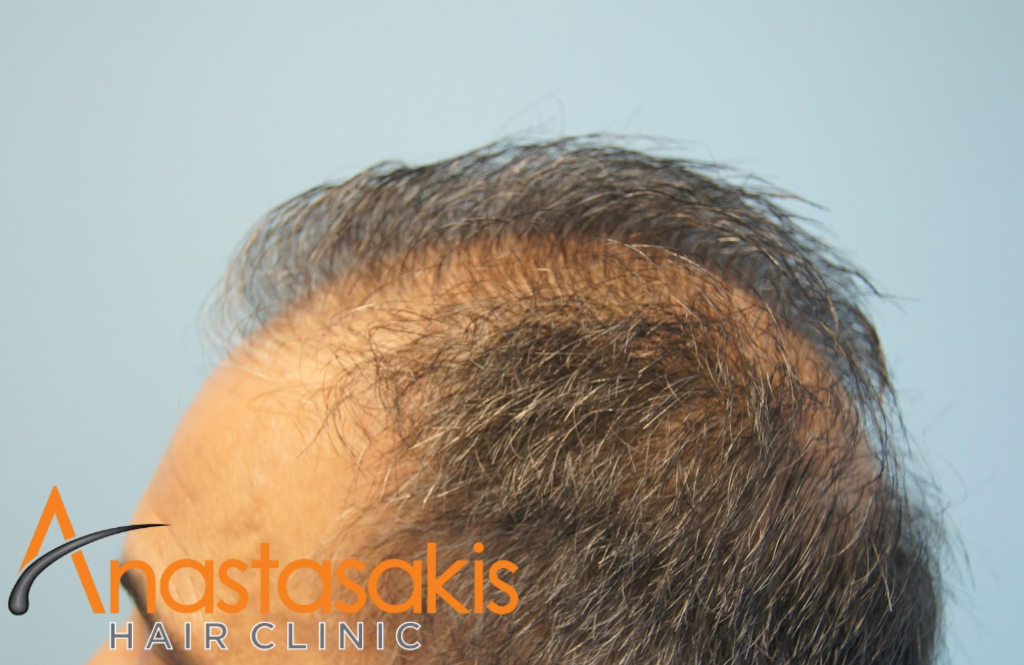 αριστερο προφιλ ασθενους πριν τη μεταμοσχευση μαλλιων με 3000 fus