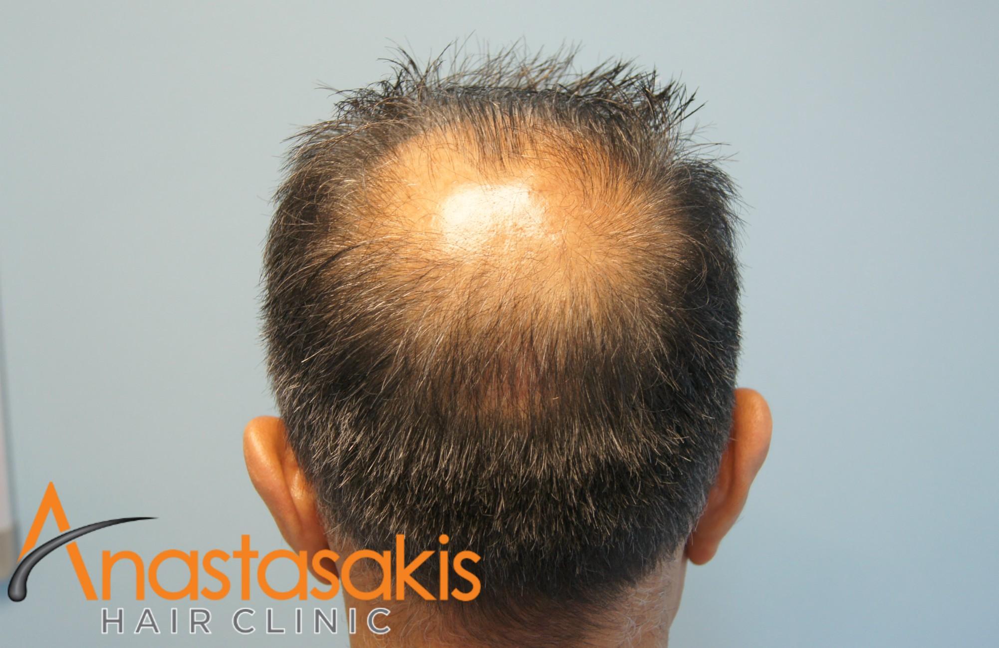 δοτρια ασθενους πριν τη μεταμοσχευση μαλλιων με 3000 fus