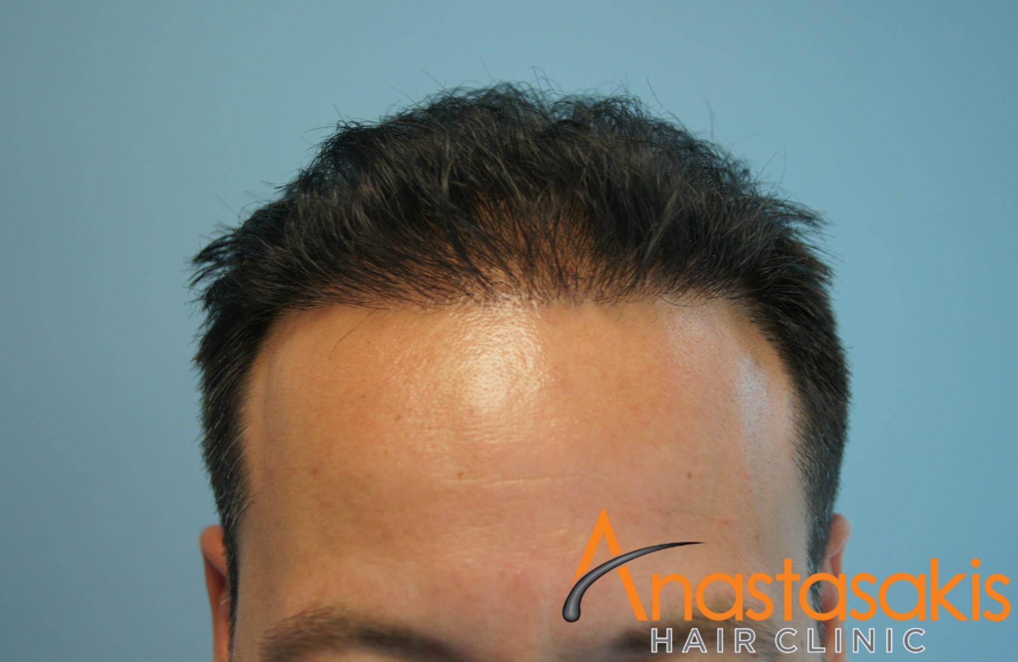 hairline βαγγελη μαρουση μετα τη μεταμοσχευση μαλλιων με 2500 fus