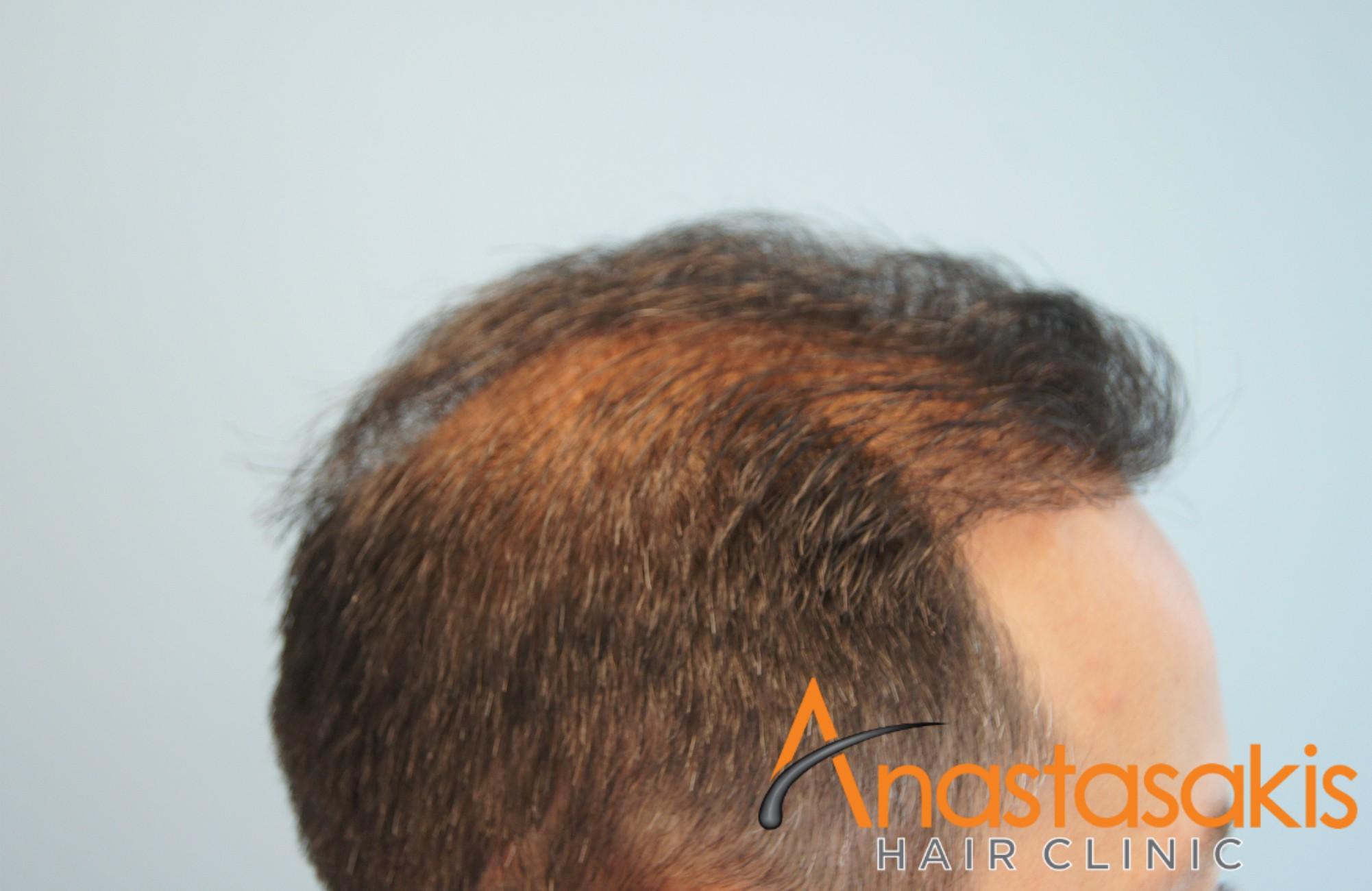 δεξι προφιλ βαγγελη μαρουση μετα τη μεταμοσχευση μαλλιων με 2500 fus