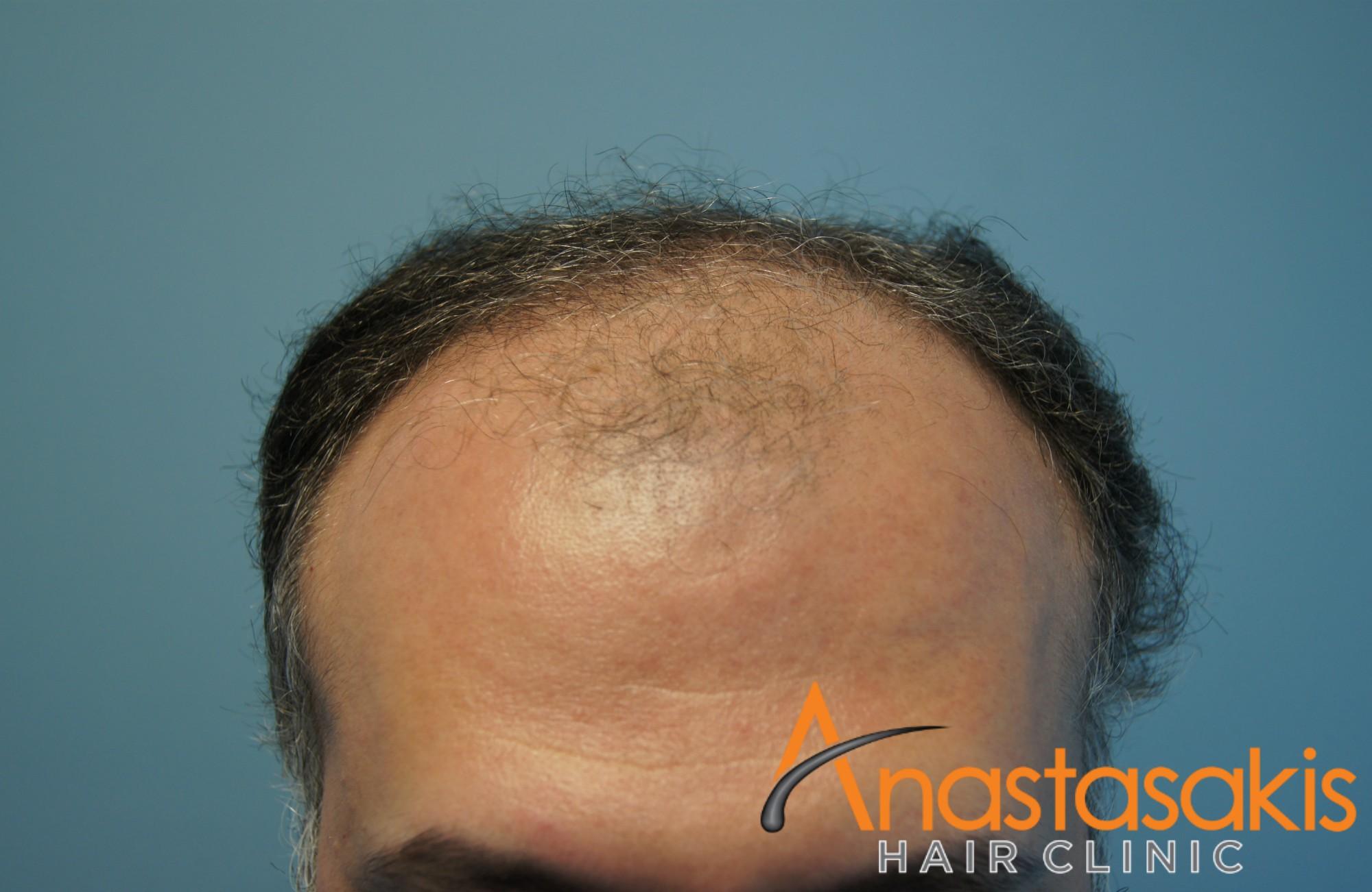 ασθενής πρίν τη μεταμόσχευση μαλλιών με 2800fus hairline