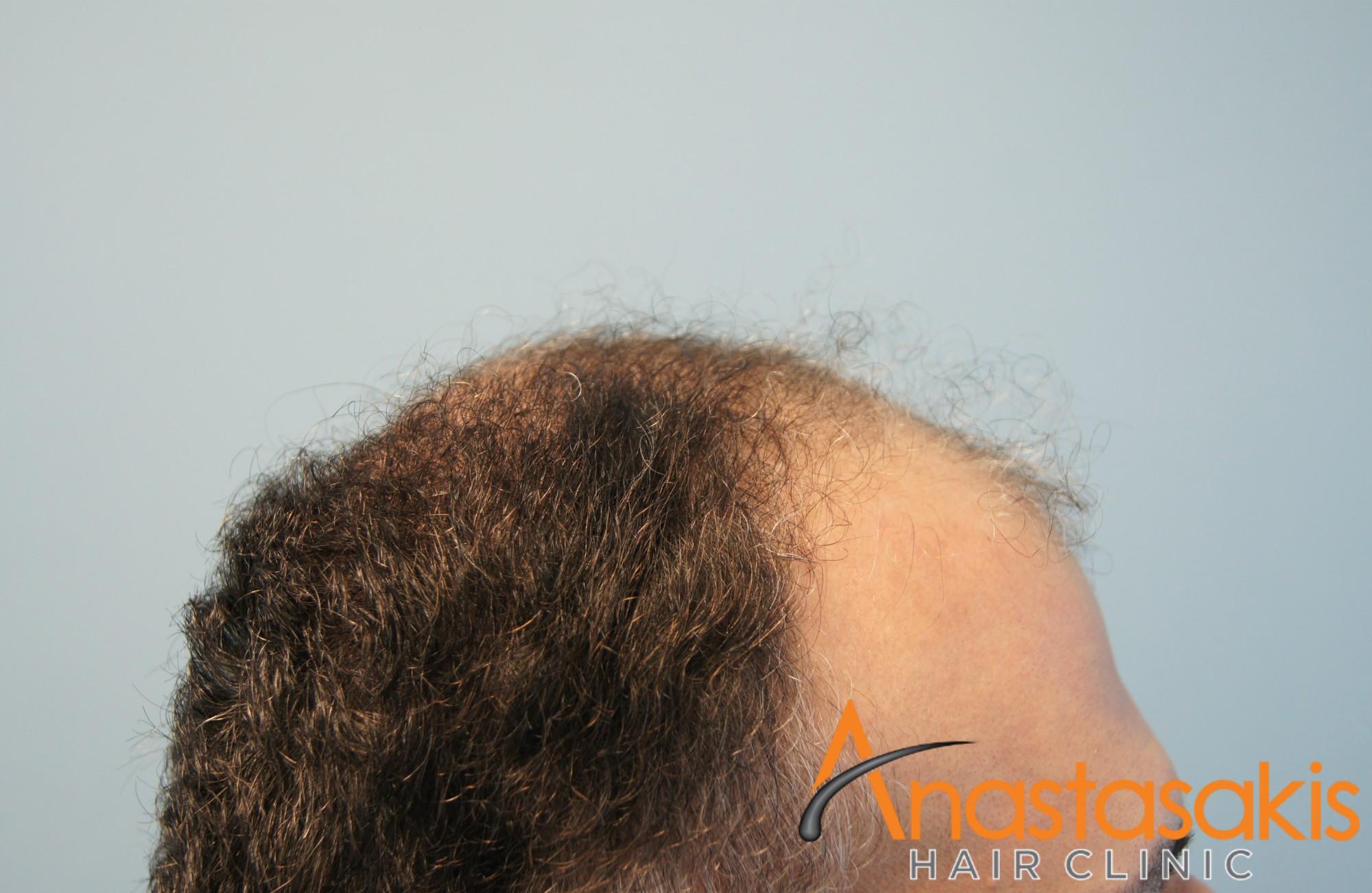 ασθενής πρίν τη μεταμόσχευση μαλλιών με 2800fus αριστερό προφίλ