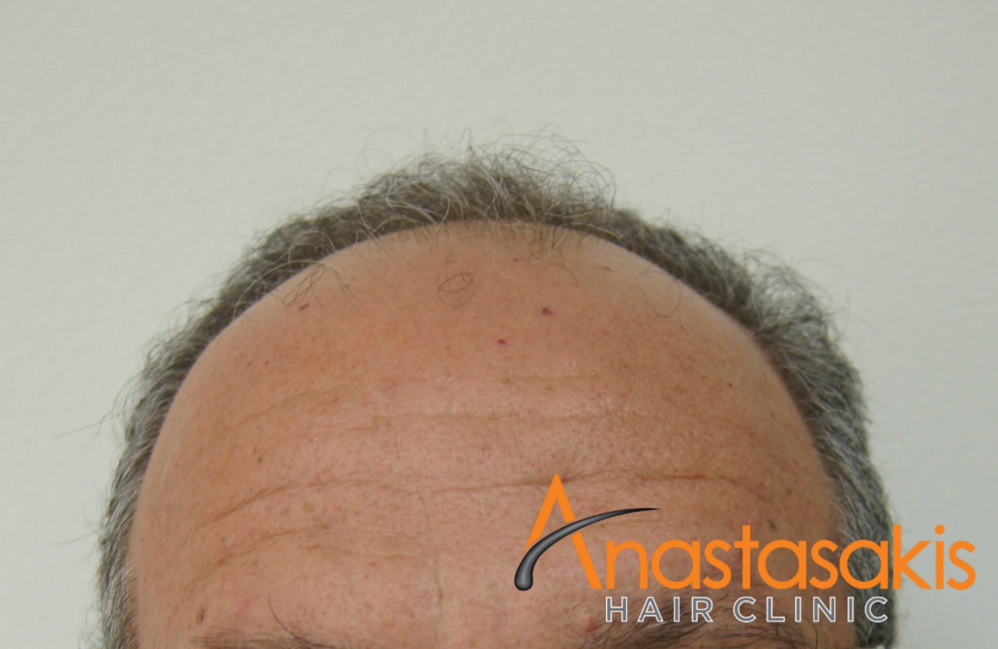 hairline ασθενους πριν τη μεταμοσχευση μαλλιων με 3200 fus