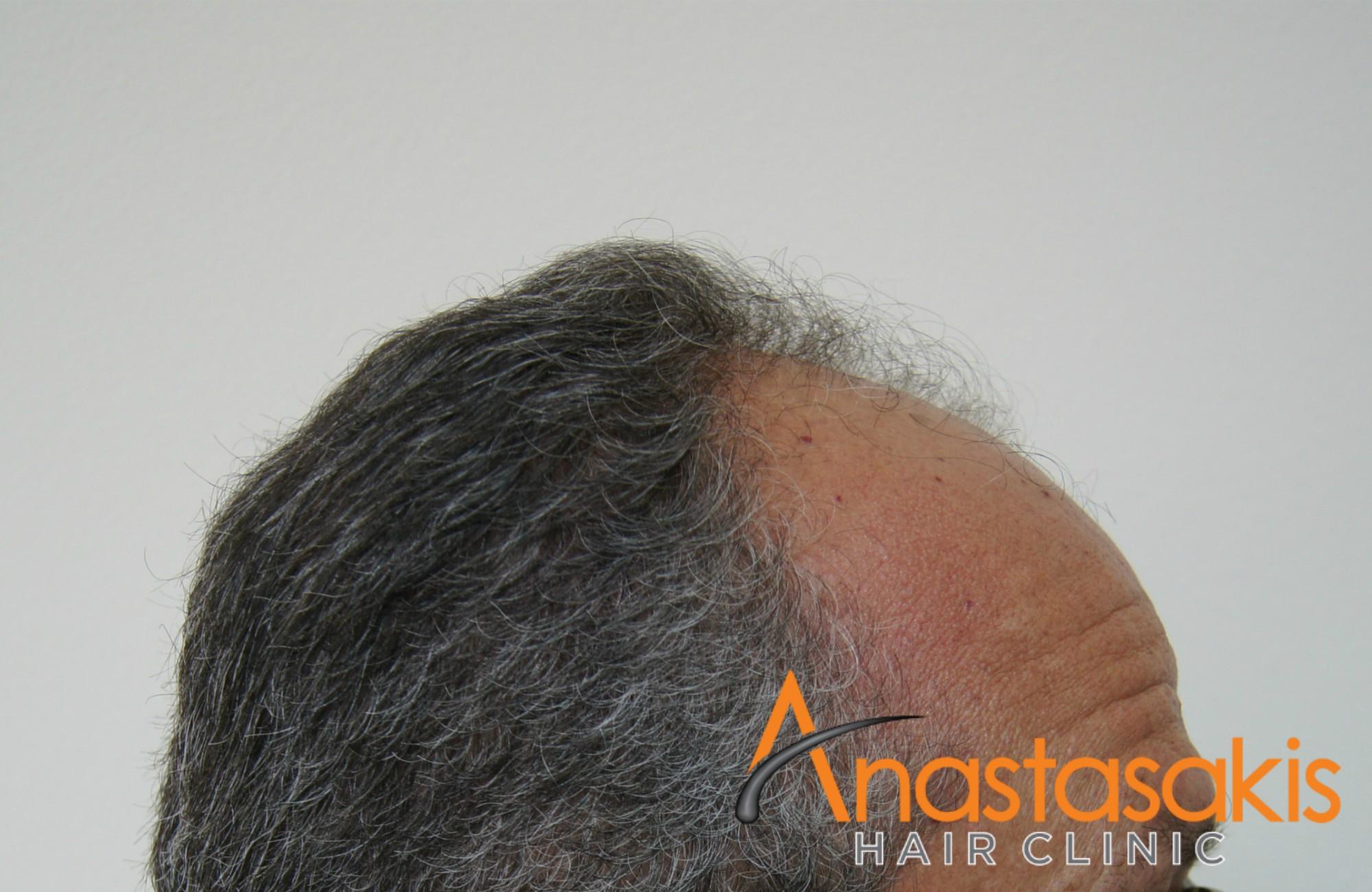 δεξι προφιλ 2 ασθενους πριν τη μεταμοσχευση μαλλιων με 3200 fus