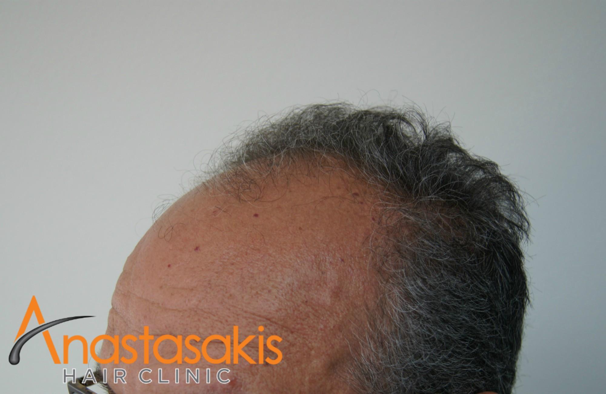 αριστερο προφιλ ασθενους πριν τη μεταμοσχευση μαλλιων με 3200 fus