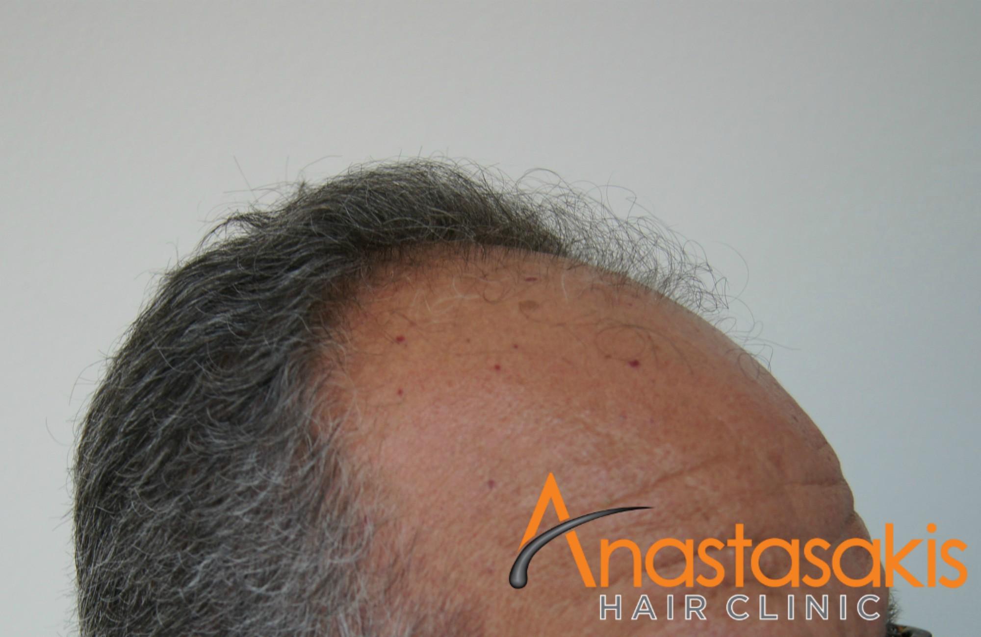 δεξι προφιλ ασθενους πριν τη μεταμοσχευση μαλλιων με 3200 fus