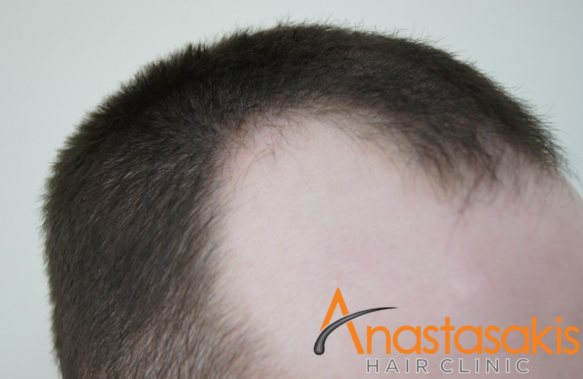 δεξι προφιλ ασθενους πριν τη μεταμοσχευση μαλλιων με 2000 fus