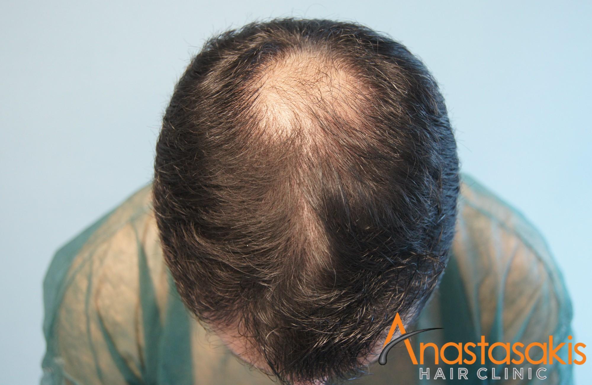 άνδρας πριν τη μεταμόσχευση μαλλιών fue με 1700fus μπροστά προφίλ