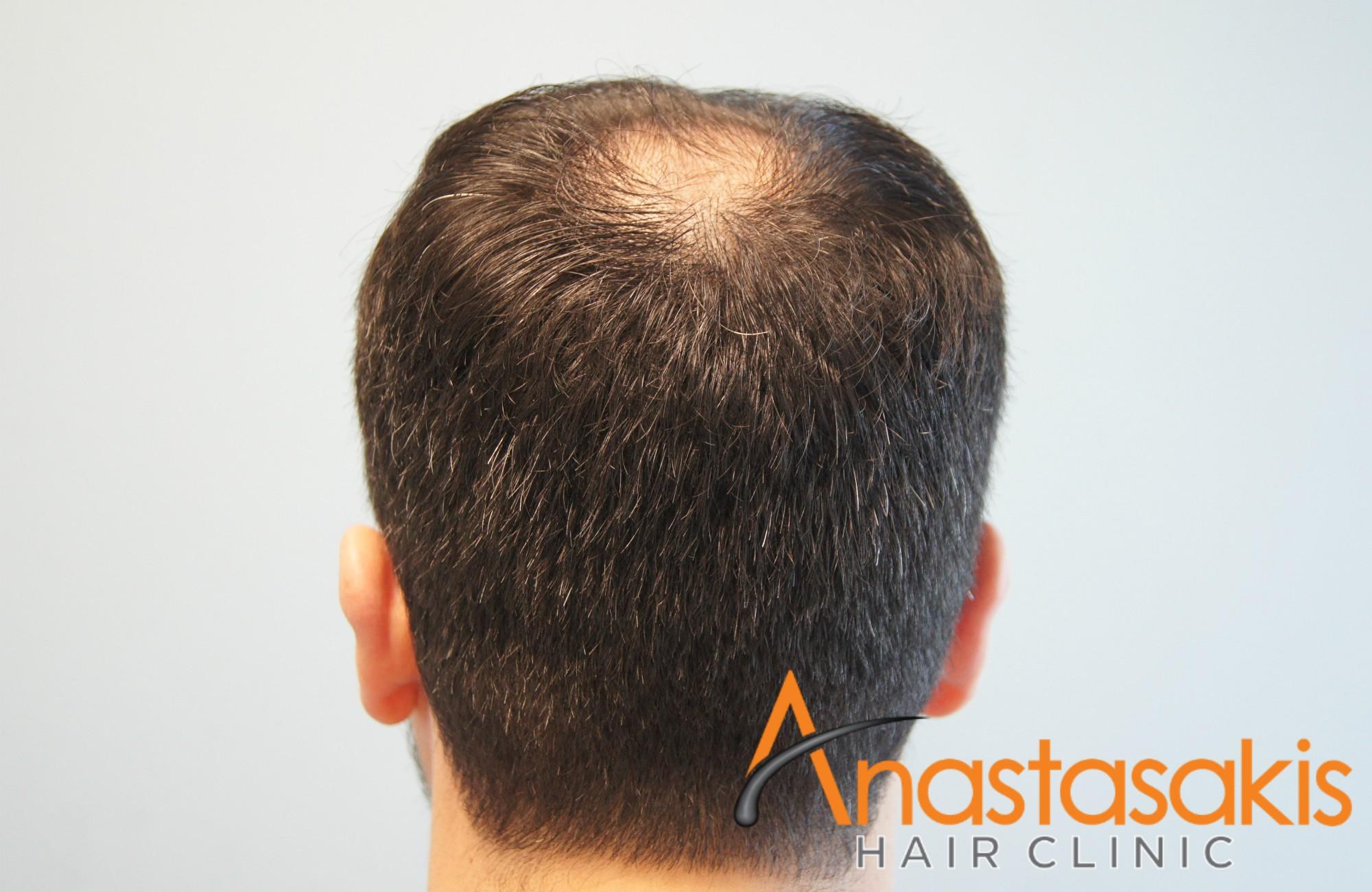 άνδρας πριν τη μεταμόσχευση μαλλιών fue με 1700fus crown