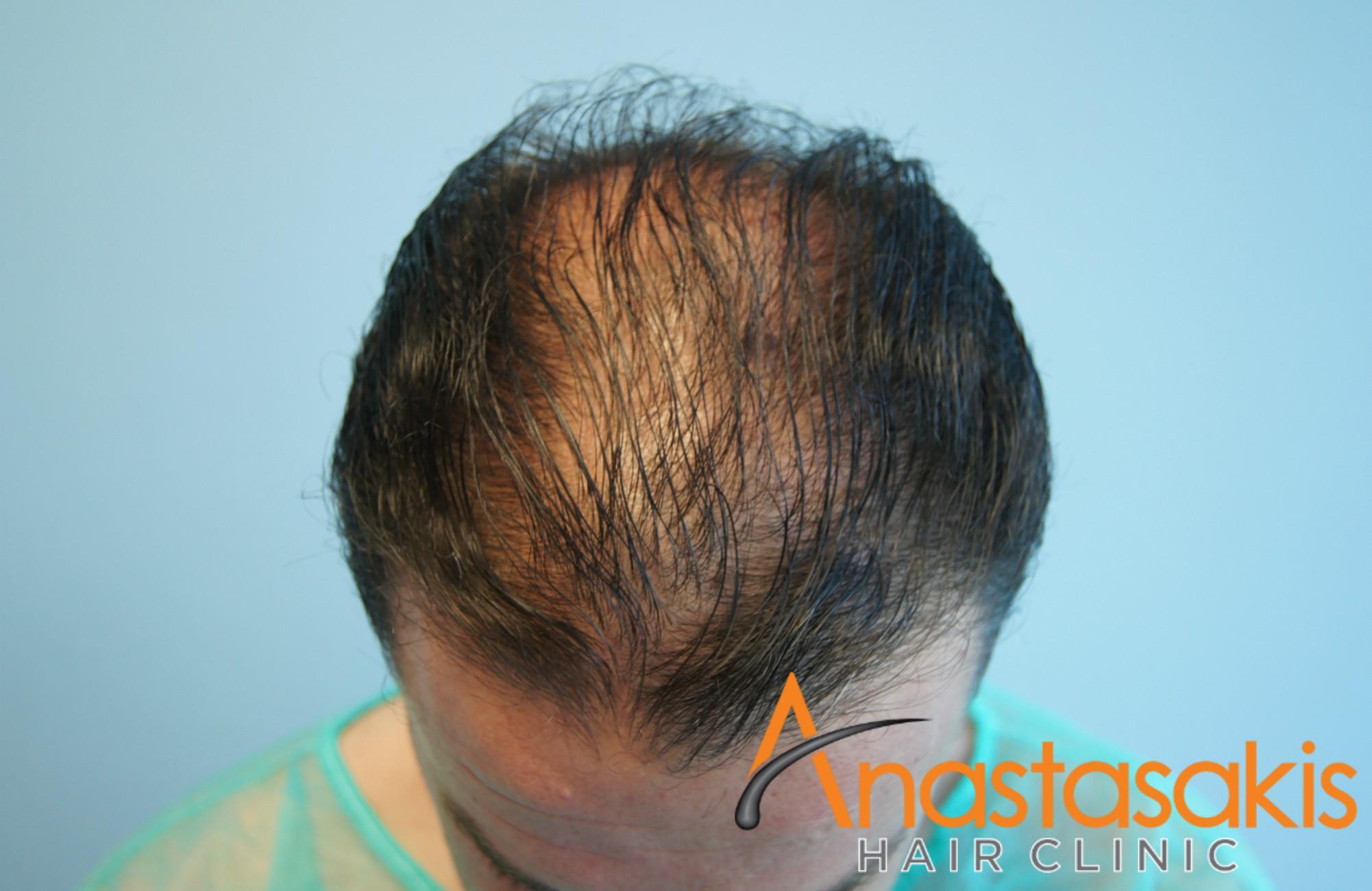 άνδρας πριν την εμφύτευση μαλλιών fut με 3500fus μπροστά προφίλ