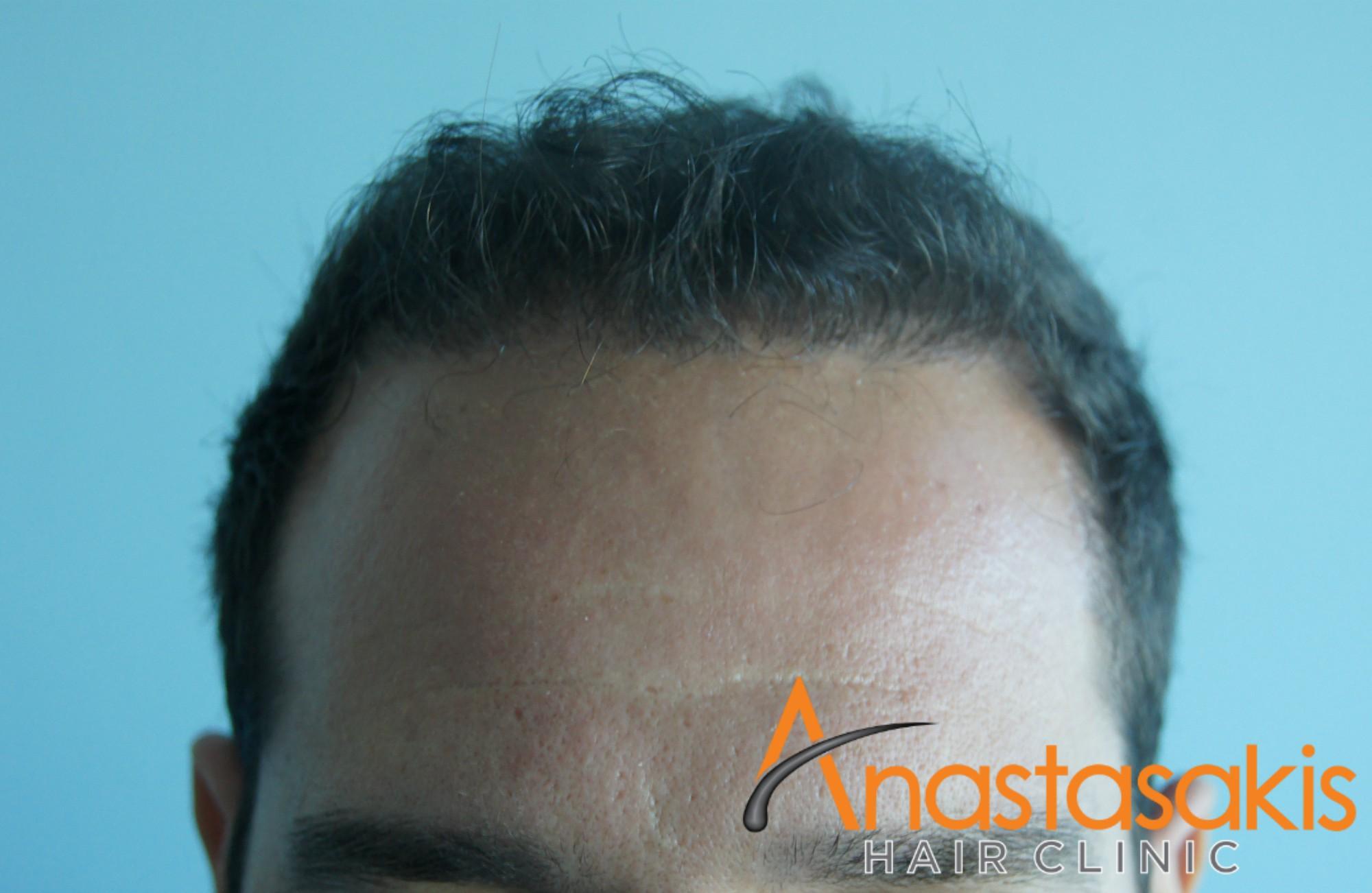 περιστατικό FUT με 3000fus hairline μετά