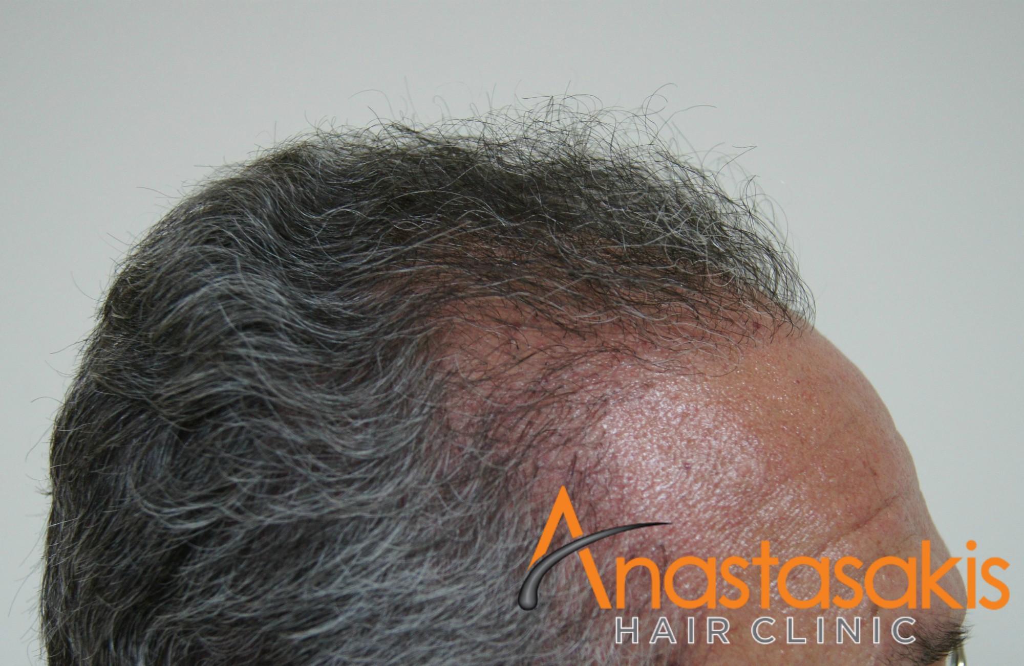 δεξι προφιλ 2 ασθενους μετα τη μεταμοσχευση μαλλιων με 3200 fus