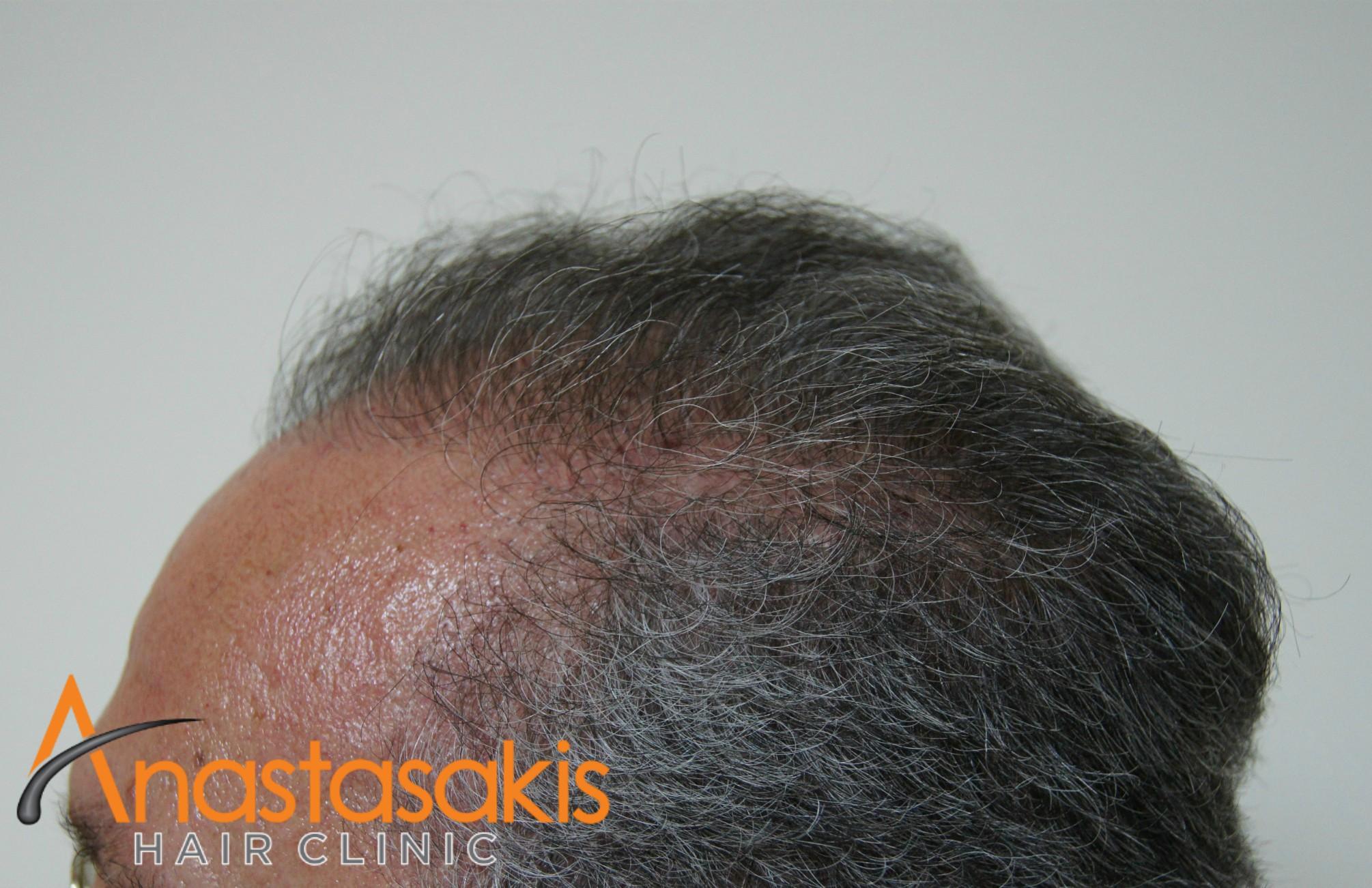 αριστερο προφιλ 2 ασθενους μετα τη μεταμοσχευση μαλλιων με 3200 fus